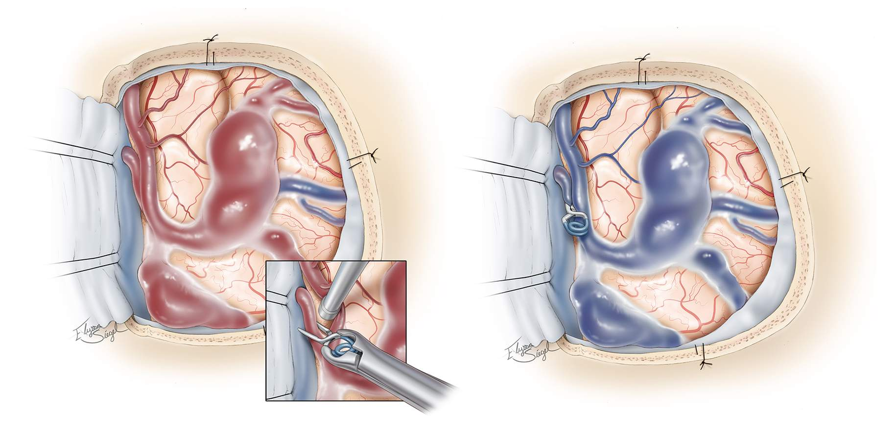 Figure 3: A left posterior frontal craniotomy for clip ligation of a single parasagittal fistula draining into the midportion of the superior sagittal sinus is illustrated. The arterialized cortical vein demonstrates venous ectasias, which are very common in this subtype of dAVFs and carry a significant hemorrhage risk (left). A clip is placed on the arterialized vein at the site of its connection to the venous sinus with resultant occlusion of the fistula (left image, inset), after which the varices turn dark blue (right). Intraoperative fluorescence videoangiogram can confirm the lack of flow within the venous ectasias or varices. The varices do not need to be resected.