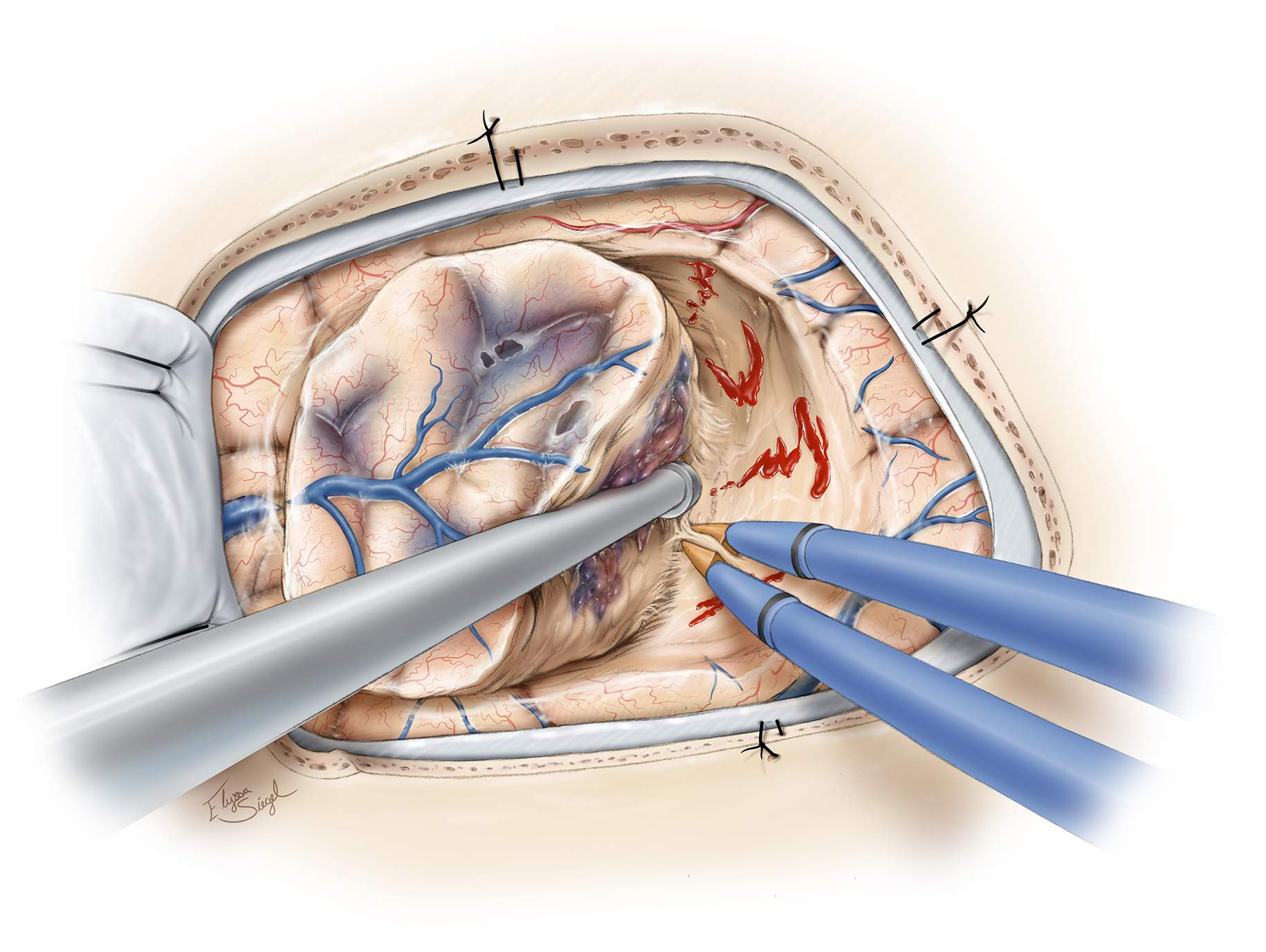 Figure 7: The malformation is disconnected from the surrounding white matter tracts. Pockets of hematoma at various stages of organization are encountered and evacuated. Subcortical dissection is maintained close to the wall of the nidus. CMs do not own high-flow feeders and their dissection does not involve significant bleeding.