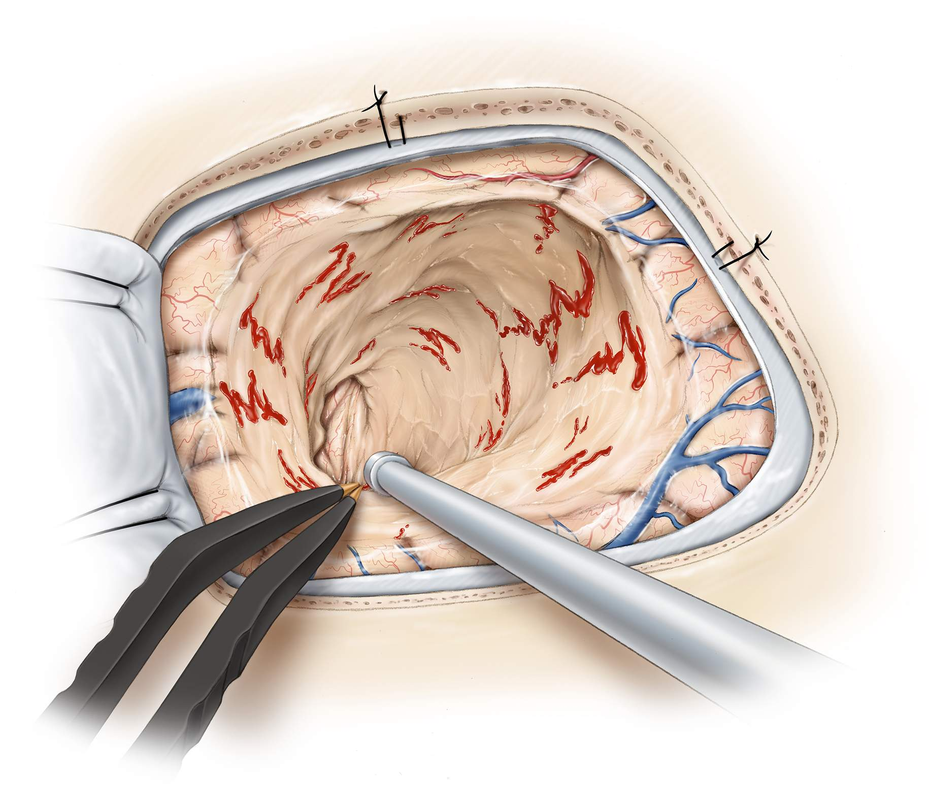 Figure 10: A careful examination of the resection cavity is warranted to exclude any remnants. The opening into the right frontal ventricle is apparent. The surrounding rim of the hemosiderin-laden gliosis should be resected as this maneuver provides the best opportunity for seizure freedom after surgery.