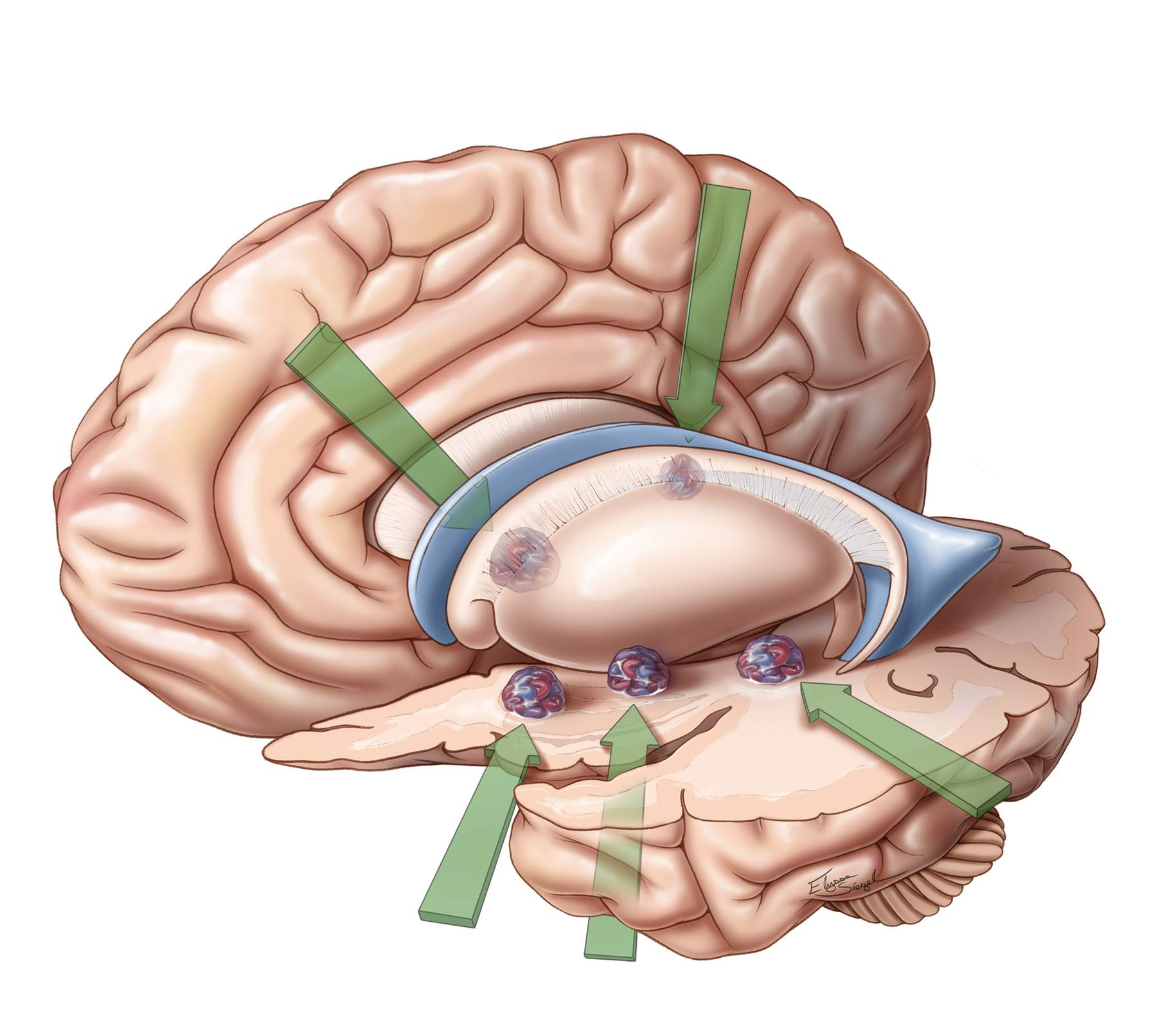 Figure 3: The CMs located in the basal ganglia are readily approached via transcallosal (both ipsi- and contralateral interhemispheric), subfrontal supracarotid, transinsular and transparietal cortical routes.