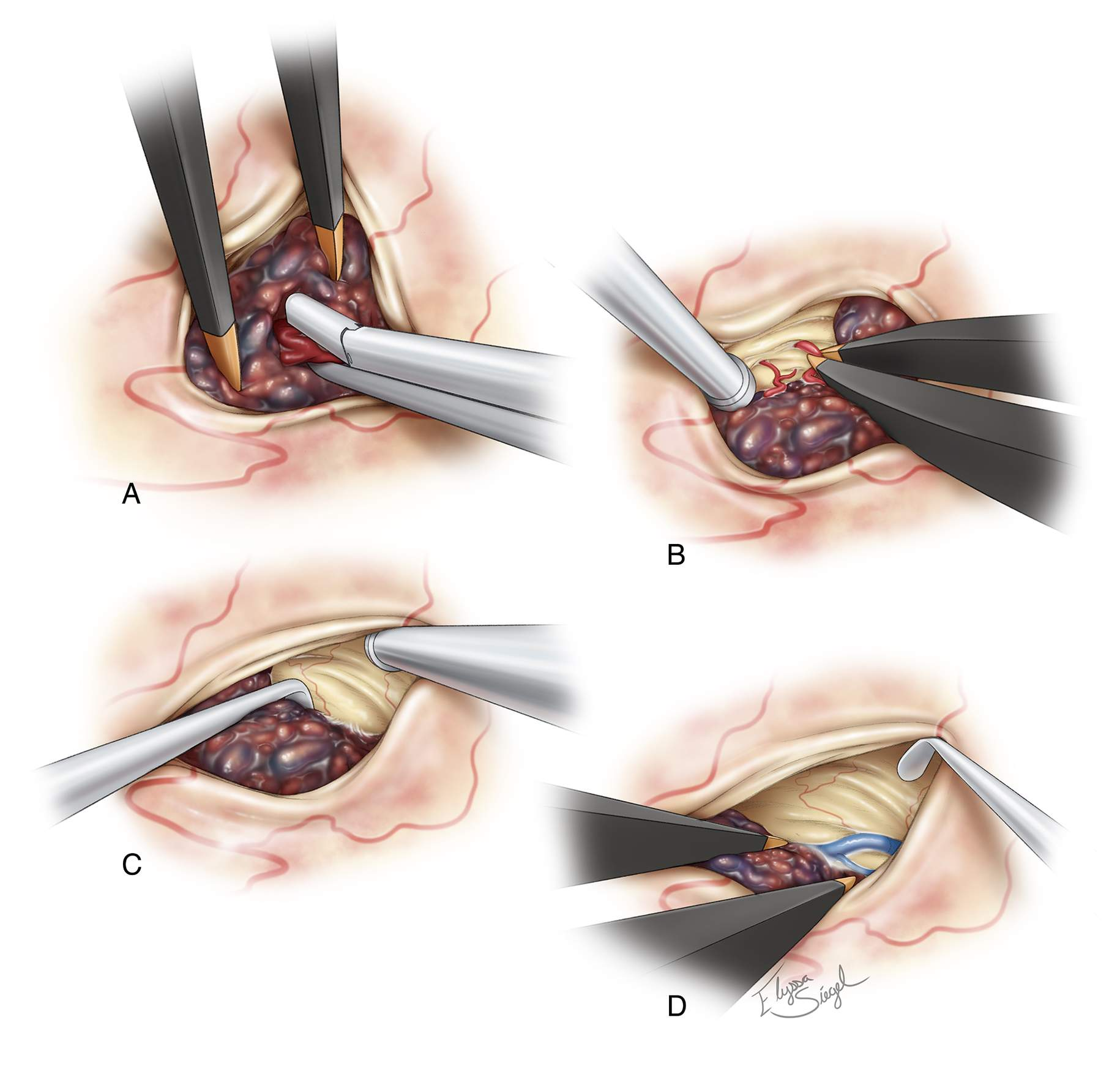 Figure 6: After exposure of the CM, the suction device or pituitary rongeurs are used to evacuate the hematoma from within and around the CM (A). Next, the small feeding vessels are isolated, coagulated, and cut (B). The capsule of the decompressed lesion is mobilized away from the gliotic margins (C). The DVA is carefully protected and mobilized away from the lesion (D).
