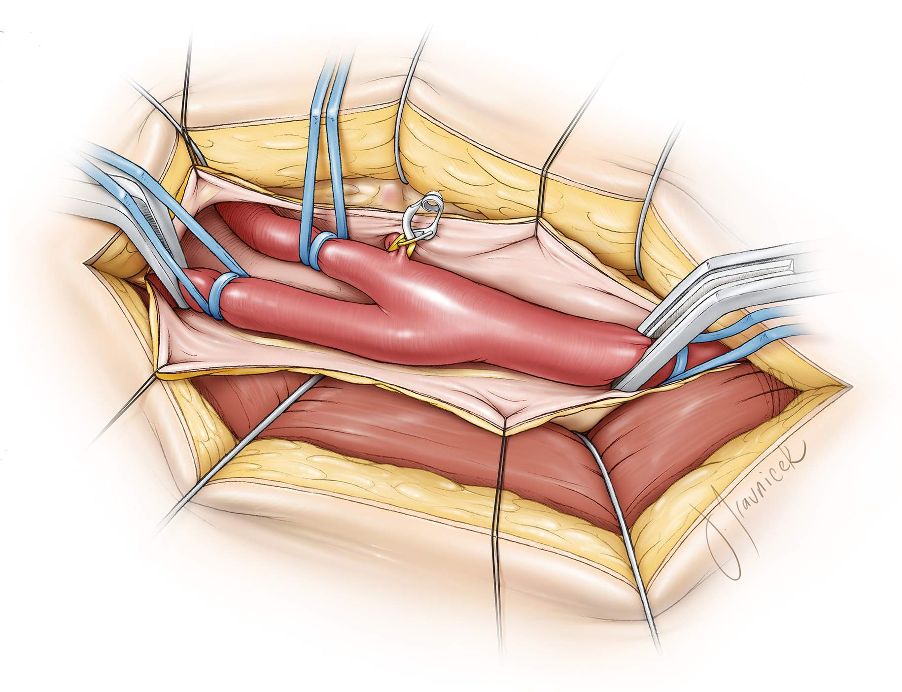 Figure 10:  I incise the carotid sheath parallel to the axis of the ICA and place the lateral edges of the sheath under tension using the fish-hooks or four sutures. This key maneuver elevates the ICA out of its groove closer to the surgeon, and remarkably eases the later steps and working angles of the operation.  Long vascular clamps (long aneurysm clips or bulldog clamps) are placed distal to the vessel loops on the ICA, and a Fogarty vascular clamp is placed on the CCA proximal to the plaque. The vessel loops on the ICA hold the ICA clamp in position. A vessel loop on the ECA is adequate for its occlusion. The ICA is occluded first.