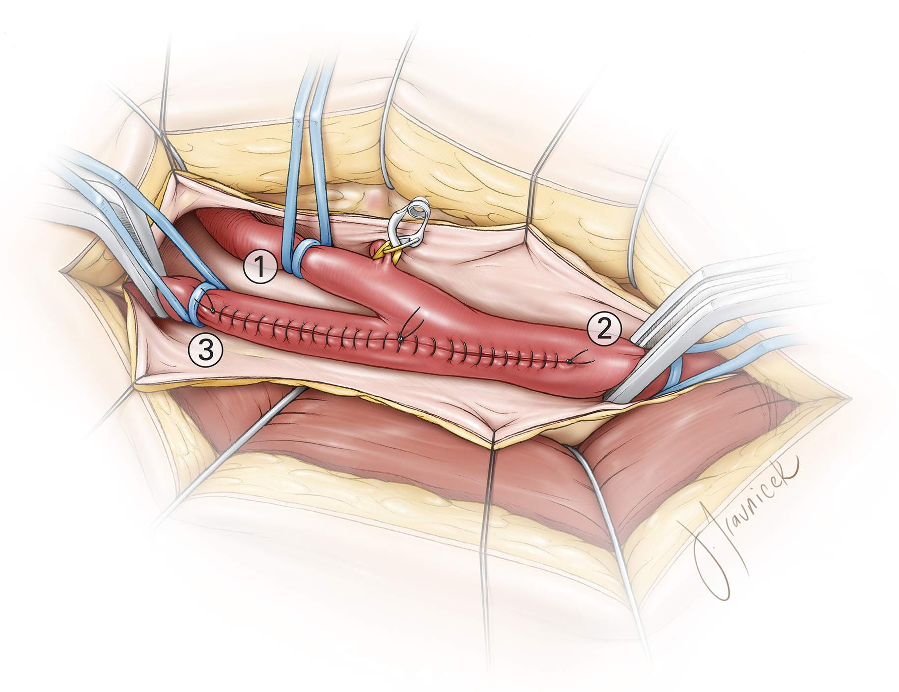 Figure 20: The order of clamp removal and flow restoration is illustrated. This order of flow restoration is imperative to avoidance of distal embolization.