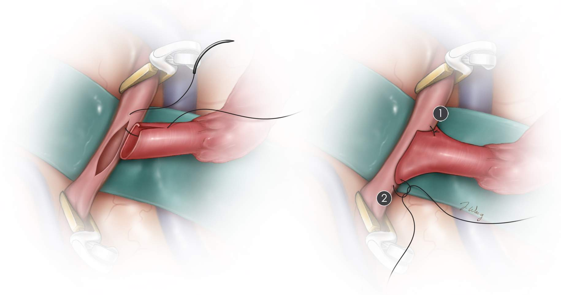 Figure 9: The initial heel and toe sutures of the anastomosis are illustrated. Using 9-0 or 10-0 nonabsorbable sutures, the heel followed by the toe of the distal end of the STA is sutured to the complementary ends of the recipient artery. The sutures are placed from an outside-to-inside direction in the STA and an inside-to-outside direction on the recipient MCA branch.