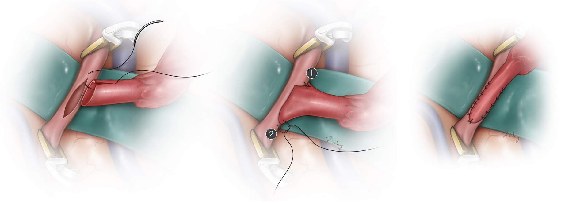 Figure 5. (Top) The initial sutures of the anastomosis are illustrated. (Bottom) The final product of the STA–MCA bypass is displayed.