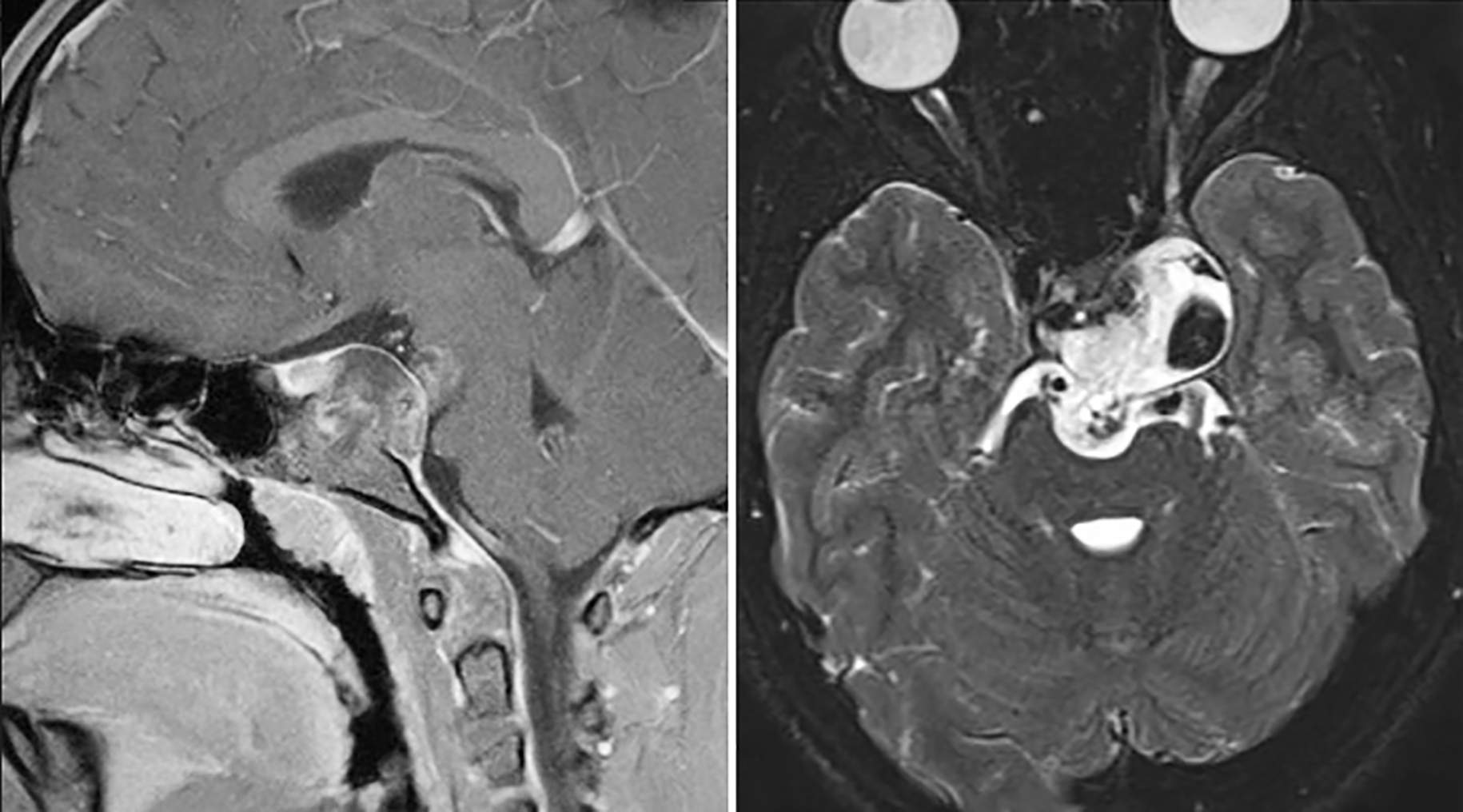 Figure 1. A chordoma is shown centered and pushing against normal brain on magnetic resonance imaging (MRI) from side (left) and top-down (right) views.