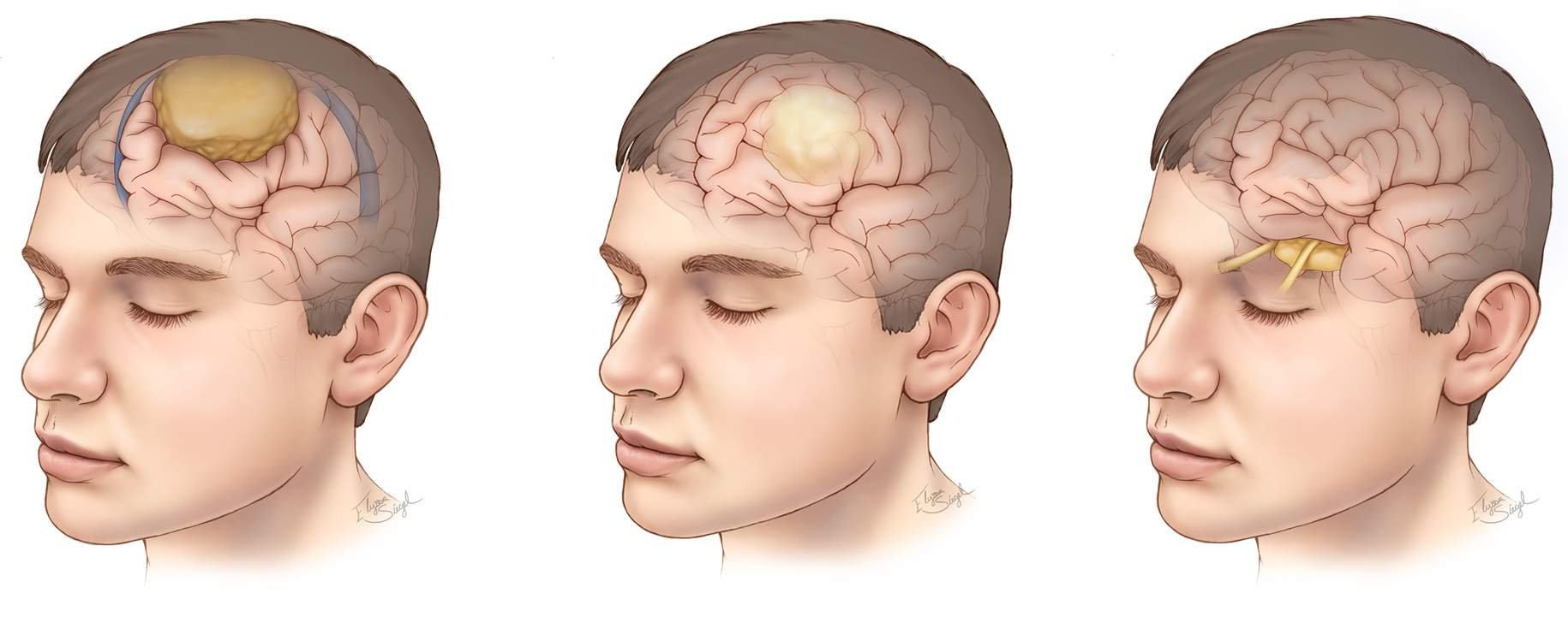 Figure 1. Different types of brain tumors. Meningioma (left), glioma (center), and pituitary tumor (right) are among the most common brain tumor types.