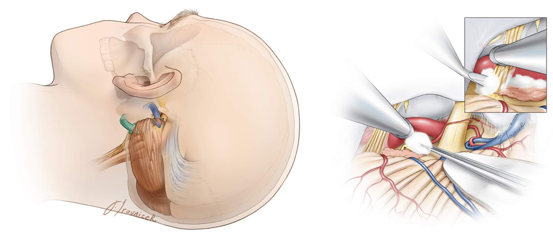 Figure 2. Area of the operation (left) and placement of packing material between the artery and nerve root to decompress the nerve (right).