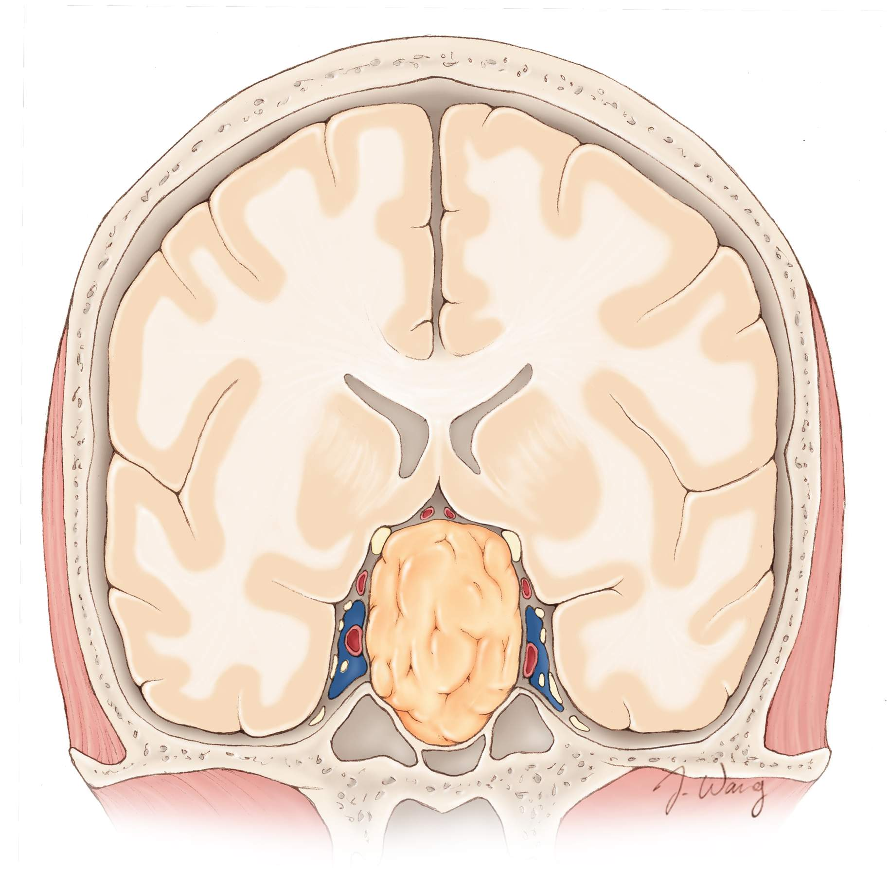 Figure 1. Cross-section of a pituitary tumor.