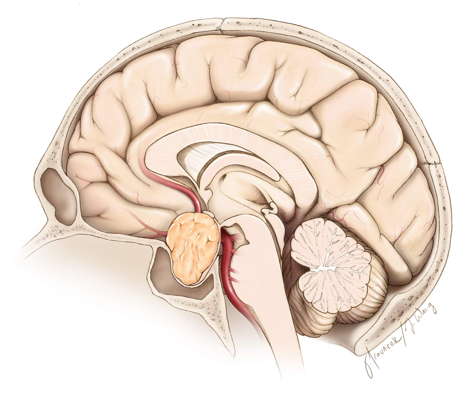 Figure 2. Endonasal approach to a pituitary tumor.