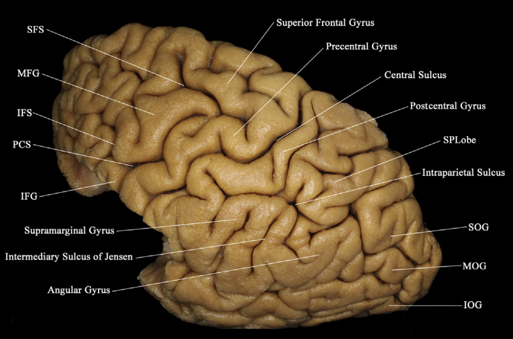 Lateral View of the Lateral Cerebral Surface Showing the ...