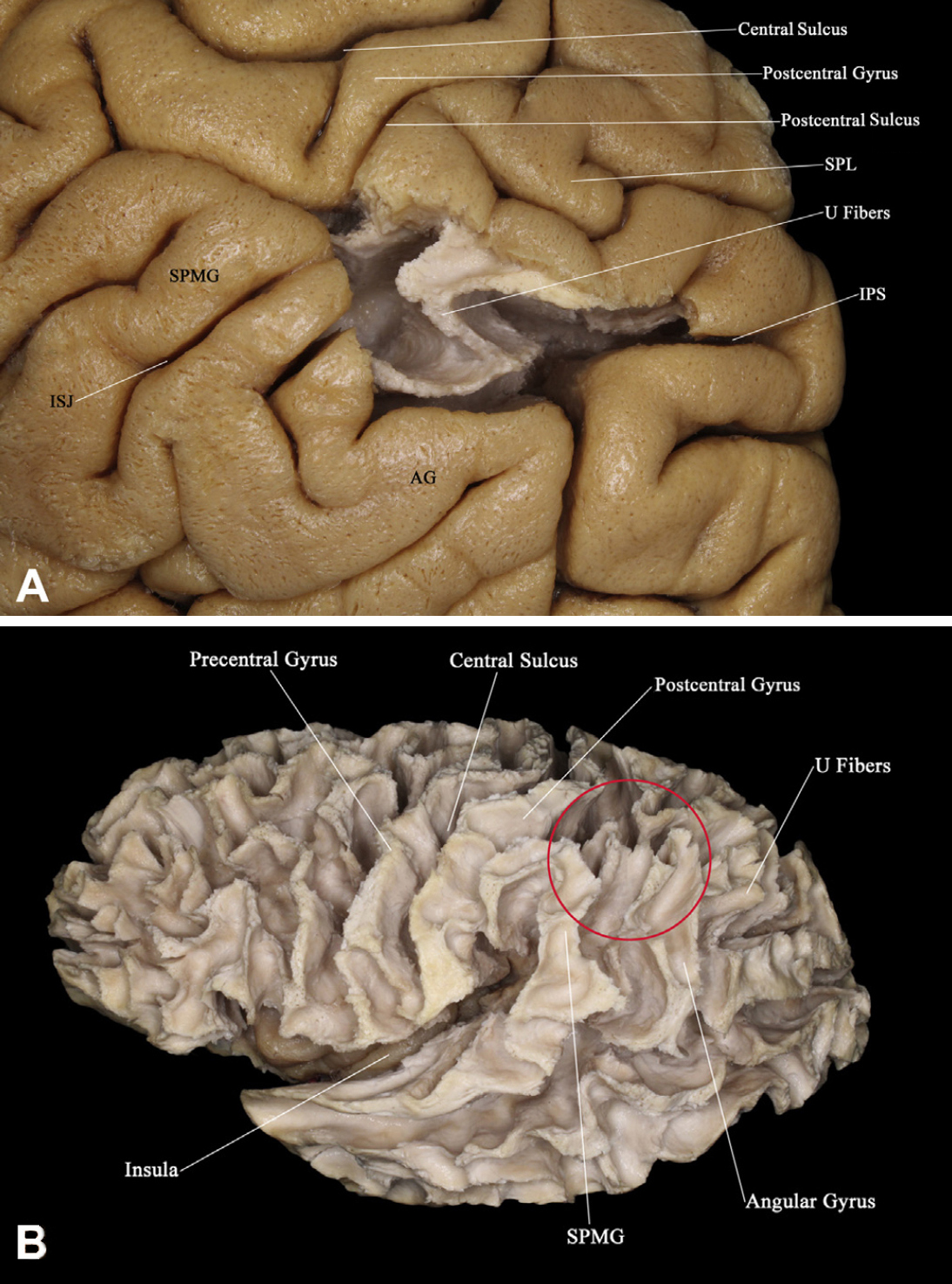 Lateral View of the Brain Centered at the Level of the ...