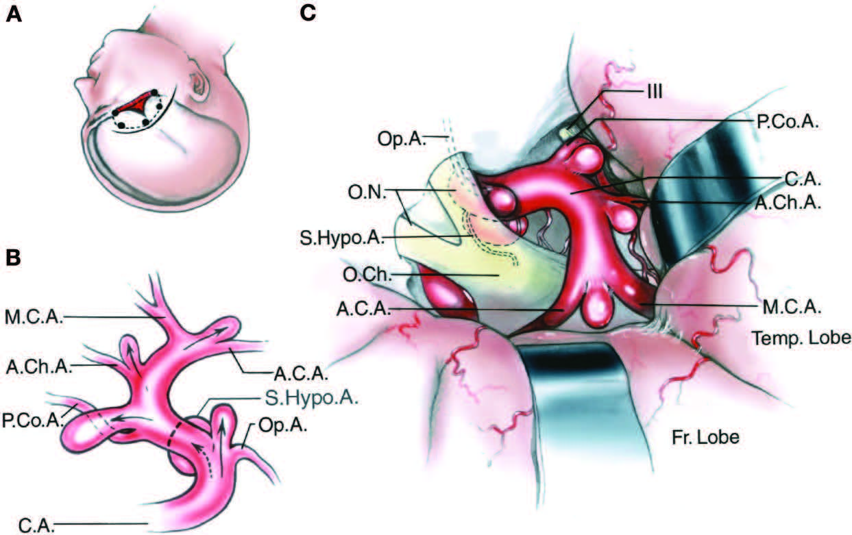 FIGURE 3.3. Operative view of aneurysm sites on the internal carotid artery. A, scalp incision (solid line), bone flap (dotted line), and craniectomy (red area) for approaching internal carotid artery aneurysms. B, lateral view of the right internal carotid artery showing aneurysm sites. C, operative view provided by a right frontotemporal craniotomy with brain spatulas on the frontal and temporal lobes. These aneurysms point in the direction (arrows in B) of the maximal hemodynamic force proximal to the aneurysm site and in the direction the blood would have gone if there were no curve in the parent artery at the aneurysm site. The aneurysm sites on the internal carotid artery are located immediately distal to the origin of its branches. Aneurysms arising at the origin of the ophthalmic artery point upward into the optic nerve. Aneurysms arising at the origin of the superior hypophyseal artery point medially under the optic chiasm. Aneurysms arising near the origin of the posterior communicating artery point posteriorly toward the oculomotor nerve and are usually located superolateral to the posterior communicating artery. Aneurysms arising near the origin of the anterior choroidal artery point posterolaterally and are usually located immediately superior to the origin of the anterior choroidal artery. Aneurysms arising at the carotid bifurcation into the anterior and middle cerebral arteries point upward lateral to the optic chiasm toward the anterior perforated substance. Each of the aneurysms can be approached through a frontotemporal craniotomy. A.C.A., anterior cerebral artery; A.Ch.A., anterior choroidal artery; C.A., internal carotid artery; Fr., frontal; M.C.A., middle cerebral artery; O.Ch., optic chiasm; O.N., optic nerve; Op.A., ophthalmic artery; P.Co.A., posterior communicating artery; S.Hypo.A., superior hypophyseal artery; Temp., temporal.
