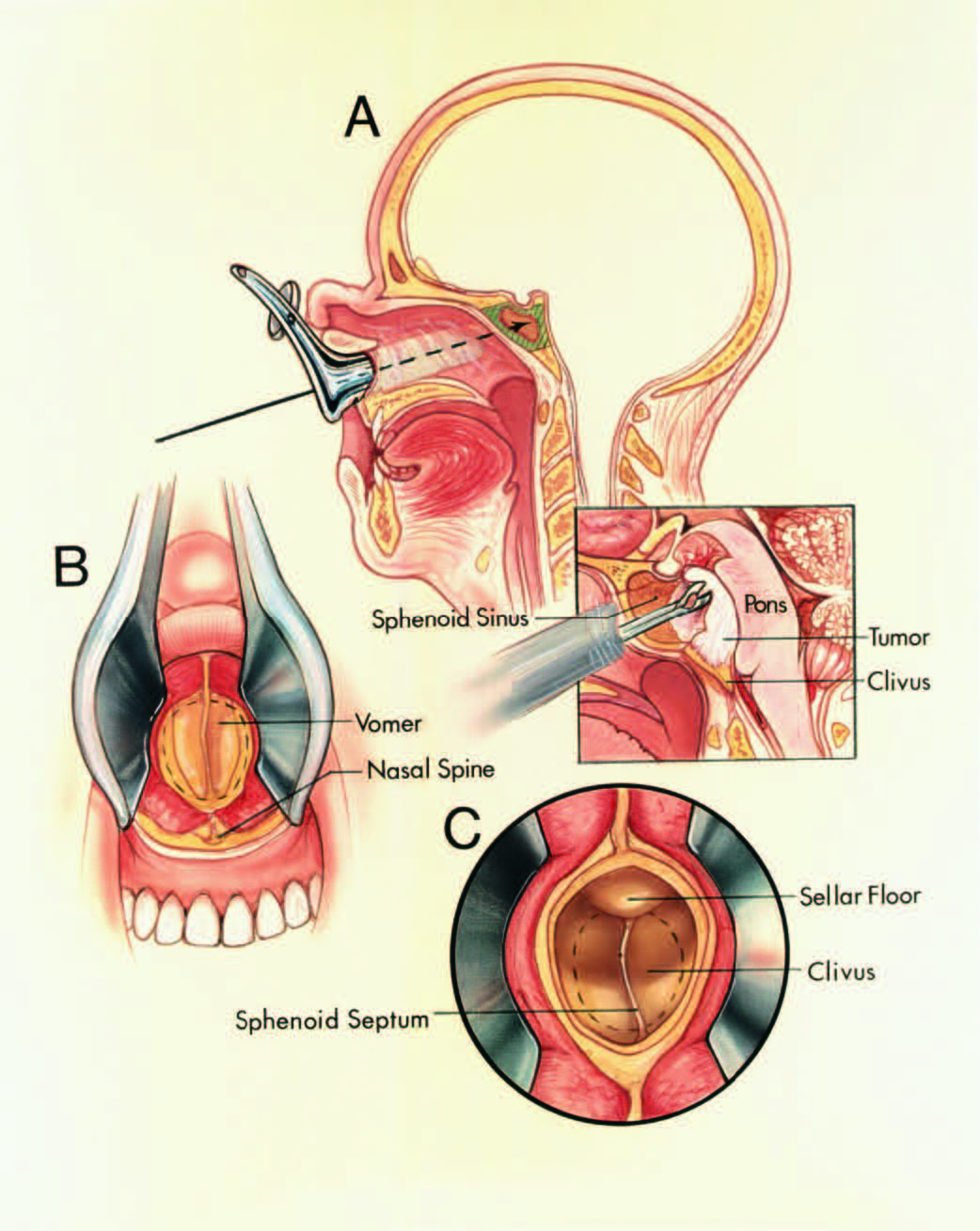 FIGURE 6.17. Transsphenoidal approach. A, Upper left, this approach, directed beneath the upper lip, along the nasal septum, and through the sphenoid sinus, may be used to expose the upper third of the clivus. The resectable area (oblique lines) includes the floor and anterior wall of the sella, the vomer, and the upper third of the clivus. This approach is suitable for biopsying some tumors that extend upward from the foramen magnum. Lower right, a cup forceps biopsies a clival tumor. B, view through nasal speculum. The anterior nasal spine is preserved and the anterior part of the septal cartilage remains attached to the septal mucosa on one side. The nasal speculum is inserted between the left side of the nasal septum and its mucosa. The nasal septum and the mucosa on the right side of the septum are pushed to the right by the speculum, and the mucosa on the left side of the septum is pushed to the left. The keel on the vomer is exposed. C, magnified view. The vomer has been removed to open the sphenoid sinus. The sellar floor is above the midline septum. In approaching the clivus, the floor of the sella is removed, and the opening in the bone is extended downward on the clivus (interrupted lines) to the inferior margin of the sphenoid sinus.