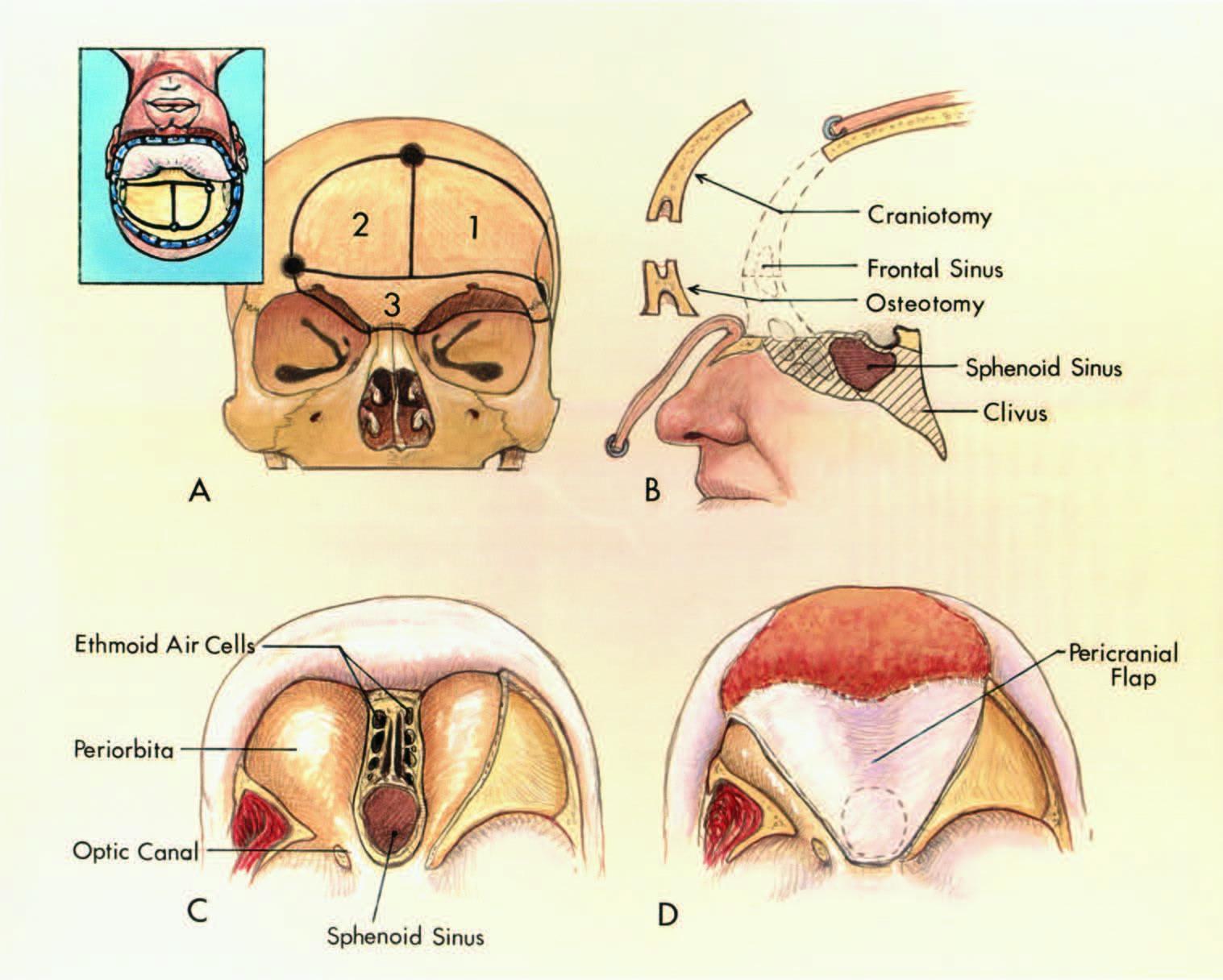 FIGURE 6.21. Extended frontal approach. A, the upper left insert shows the scalp flap and the order of the removal of the cranial bones (1, 2, 3). The third step, the orbitofrontoethmoidal osteotomy, includes both supraorbital ridges, the anterior part of the roof of the orbits, the frontal sinus, cribriform plate, and part of the ethmoid air cells in one block. B, sagittal view. The oblique lines along the skull base show the possible extent of the bone removal. The foramen magnum is reached after removing the posterior part of the floor of the anterior fossa, the ethmoid air cells, walls of the sphenoid sinus, and the clivus. C, the periorbita is exposed along both orbital roofs. The bone removal has been extended into the ethmoid air cells and the sphenoid sinus. The exposure can be extended along the clivus down to the foramen magnum. D, use of pericranial flap for reconstruction. A fat graft is placed in the ethmoid and sphenoid sinuses before reflecting the pericranial flap over them. In addition, a fat graft may also be applied to the inner side of the pericranial flap. (From, Rhoton AL Jr: Anatomical basis of surgical approaches to the region of the foramen magnum, in Dickman CA, Spetzler RF, Sonntag VKH (eds): Surgery of the Craniovertebral Junction. New York, Thieme Medical Publishers, Inc., 1998, pp 13–57 [24].)