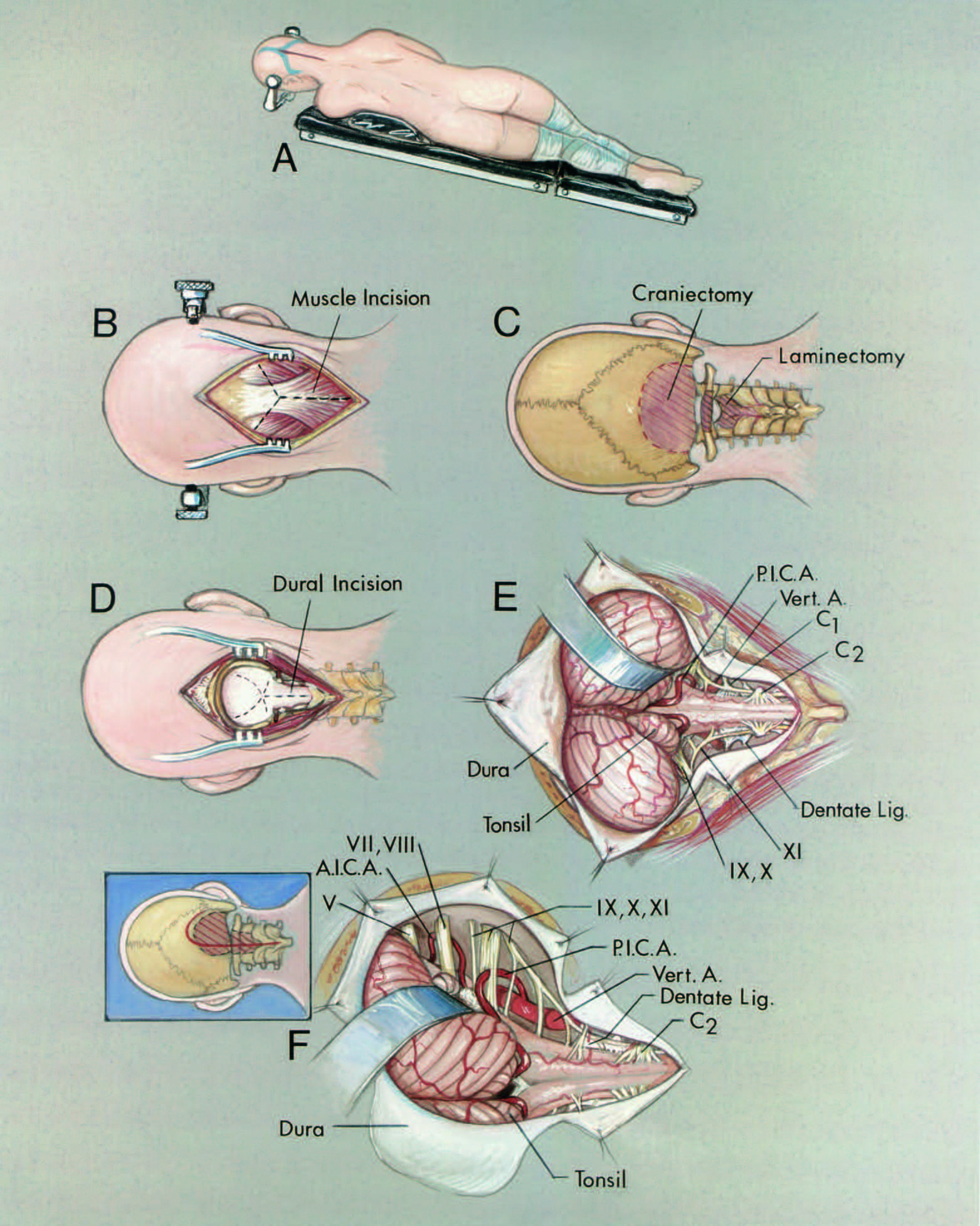 "FIGURE 6.8. Suboccipital approaches. Either a vertical midline or hockey-stick incision is used, depending on the site of the lesion. A, the patient is most commonly placed in the three-quarter prone position. B, the vertical midline incision is selected for lesions situated in the upper spinal canal and for those located posteriorly or posterolaterally in the area above the foramen magnum. The subcutaneous tissues are separated from the underlying fascia near the inion to gain room for a Y- shaped incision in the muscles. The upper limbs of the ""Y"" begin at the level of the superior nuchal line and join below the inion. C, the incision is of sufficient length to complete a suboccipital craniectomy and a laminectomy of the axis and atlas (oblique lines). D, the dural incision is outlined (interrupted lines). E, intradural exposure. The major extracranial hazard is injury to the vertebral artery as it courses below the atlantoaxial joint and across the posterior arch of the atlas. The vertebral arteries and PICAs are in the lower part of the exposure. The accessory nerve ascends posterior to the dentate ligament. The glossopharyngeal, vagus, and accessory nerves pass toward the jugular foramen. F, upper left. Hockey-stick retrosigmoid exposure. Skin incision (solid line) and bone removal (oblique lines). Lower right. Intradural exposure. The hockey-stick incision extends superomedial from the mastoid process along the superior nuchal line to the inion and downward in the midline. This incision is selected if the lesion extends anterolateral or anterior to the brainstem toward the jugular foramen or cerebellopontine angle. This exposure permits the removal of the full posterior rim of the foramen magnum, the posterior elements of the atlas and axis, and, in addition, the ability to complete a unilateral suboccipital craniectomy of sufficient size to expose the anterolateral surface of the brainstem and the nerves in the cerebellopontine angle. Tumors in this area may extend upward through the cerebellomedullary fissure to be attached to the roof or floor of the fourth ventricle. Laterally situated tumors may be attached to the initial intradural segment of the vertebral artery and the thick dural cuff around the artery, which also incorporates the posterior spinal arteries and the C1 nerve root in fibrous tissue. As one moves superiorly along the lateral surface of the medulla, the origin of the PICA and the glossopharyngeal, vagus, accessory, facial, vestibulocochlear, and trigeminal nerves are encountered. The dura is closed with a dural substitute if closure of the patient's dura constricts the cerebellar tonsils or the cervicomedullary junction. A., artery; A.I.C.A., anteroinferior cerebellar artery; Lig., ligament; P.I.C.A., posteroinferior cerebellar artery; Vert., vertebral."