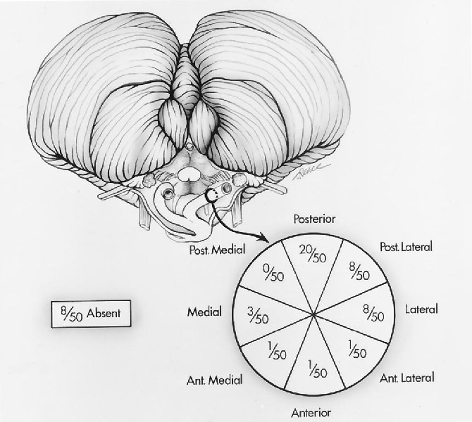FIGURE 2.19. Inferior view of the brainstem and cerebellum (top) shows the site on the circumference of the vertebral artery (lower right) of the origin of the 42 PICAs found in 50 cerebellar hemispheres. The circle on the lower right corresponds to the circumference of the vertebral artery. Eight of the 50 cerebellar hemispheres did not have a PICA. The PICA most commonly arose from the posterior, posterolateral, or lateral surface of the vertebral artery, but a few sites of origin were located on the anterior or medial half of the circumference of the artery. (From, Lister JR, Rhoton AL Jr, Matsushima T, Peace DA: Microsurgical anatomy of the posterior inferior cerebellar artery. Neurosurgery 10:170–199, 1982 [30].)