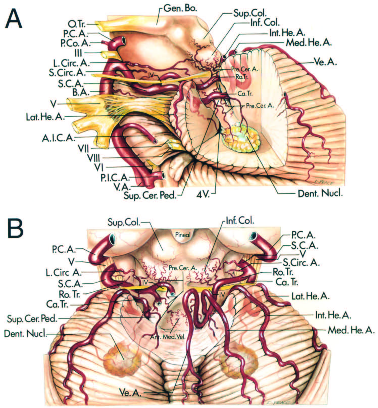 FIGURE 2.7. Relationships of the SCA. A, left lateral view of the SCA with part of the cerebellum removed to show the termination of the superior cerebellar peduncle in the dentate nucleus. The main trunk of the SCA passes below the oculomotor and trochlear nerves and above the trigeminal nerve and splits into rostral and caudal trunks. The optic tract and short circumflex arteries pass around the brainstem. The precerebellar arteries arise in the cerebellomesencephalic fissure, supply the adjoining cerebellum and the inferior colliculus, and send branches along the superior cerebellar peduncle to the dentate nucleus. The superior colliculus is supplied predominantly by the PICA. The rostral and caudal trunks split into vermian and lateral, medial, and intermediate hemispheric arteries. B, superior view with the superior lip of cerebellomesencephalic fissure removed to show branches within the fissure. The circumflex perforating arteries terminate in the inferior colliculus and the region of the junction of the superior and middle cerebellar peduncles. The precerebellar branches pass along the superior cerebellar peduncles to the dentate nucleus. The right half of the vermis is supplied by a large vermian artery and the hemispheric surface is supplied by medial, intermediate, and lateral hemispheric arteries. (From, Hardy DG, Peace DA, Rhoton AL Jr: Microsurgical anatomy of the superior cerebellar artery. Neurosurgery 6:10–28, 1980 [19].) A., artery; A.I.C.A., anteroinferior cerebellar artery; Ant., anterior; B., basilar; Bo., body; Ca., caudal; Cer., cerebellar; Circ., circumflex; Co., communicating; Coll., colliculus; Dent., dentate; Gen., geniculate; He., hemispheric; Inf., inferior; Int., intermediate; L., long; Lat., lateral; Med., medial; Nucl., nucleus; O., optic; P., posterior; P.C.A., posterior cerebral artery; Ped., peduncle; Ro., rostral; S., short; Sup., superior; Tr., trunk; V., ventricle or vertebral; Ve., vermian.