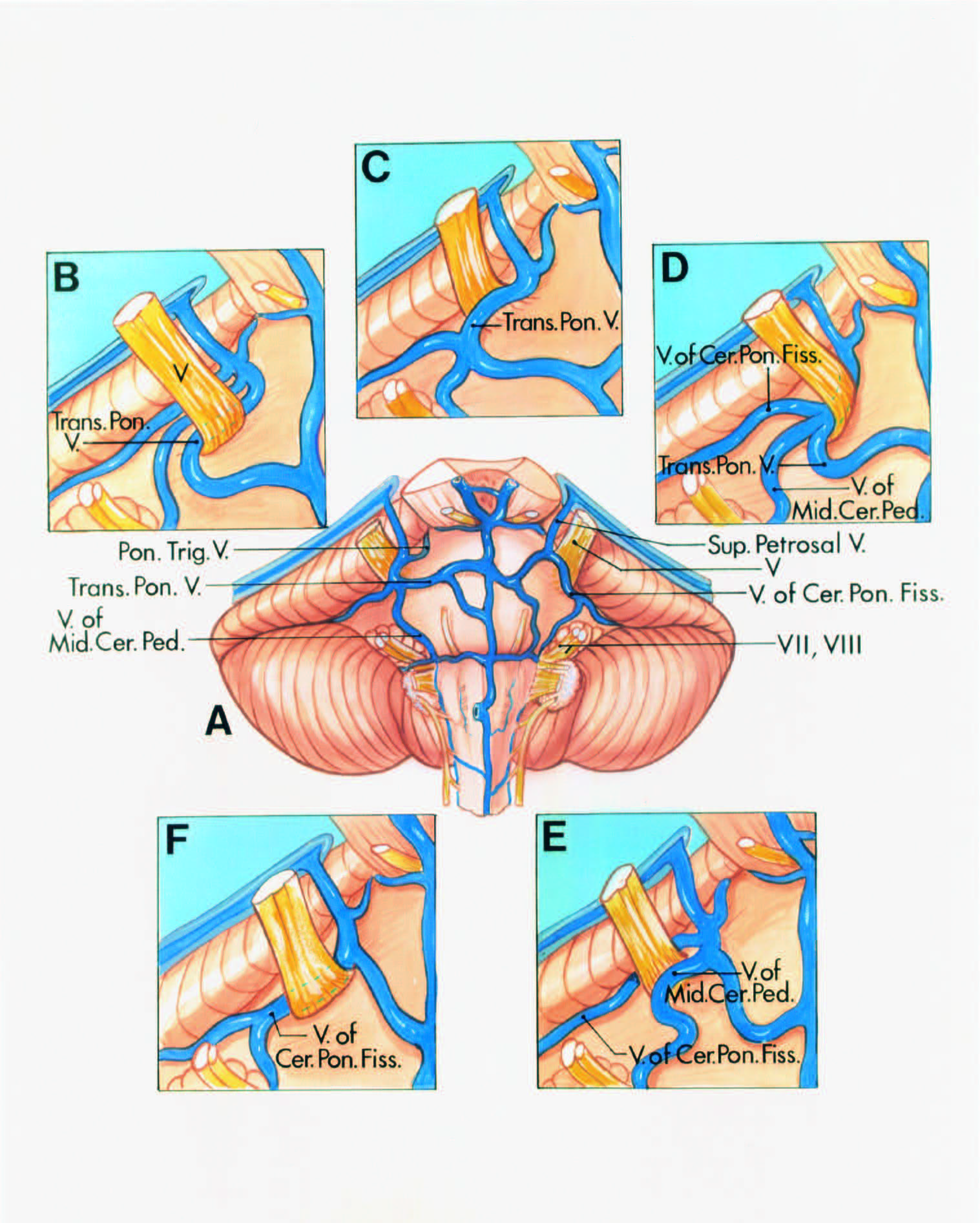 FIGURE 4.13. Sites of venous compression of the trigeminal nerve. A, central diagram. Anterior view. The veins that commonly compress the trigeminal nerve are tributaries of the superior petrosal vein. The tributaries that converge on and may compress the nerve are the transverse pontine and pontotrigeminal veins and the veins of the cerebellopontine fissure and middle cerebellar peduncle. The transverse pontine veins course transversely across the pons. The vein of the middle cerebellar peduncle arises in the region of the facial and vestibulocochlear nerves and ascends on the pons. The vein of the cerebellopontine fissure arises along the cleft between the pons and the cerebellum and ascends behind the trigeminal nerve. The pontotrigeminal vein arises on the upper pons and passes above the trigeminal nerve. B, a transverse pontine vein compresses the lateral side of the nerve and joins the veins of the middle cerebellar peduncle and cerebellopontine fissure to empty into a superior petrosal vein. C, the medial side of the nerve is compressed by a tortuous transverse pontine vein. D, the lateral side of the nerve is compressed by the junction of the transverse pontine vein withthe veins of the middle cerebellarpeduncle and thecerebellopontine fissure. E, thenerve is compressed on themedial side by the vein of the middle cerebellar peduncle and on the lateral side by the vein of the cerebellopontine fissure. F, the lateral side of the nerve is compressed by the vein of the cerebellopontine fissure. (From, Rhoton AL Jr: Microsurgical anatomy of decompression operations on the trigeminal nerve, in Rovit RL, Murali R, Jannetta PJ (eds): Trigeminal Neuralgia. Baltimore, Williams & Wilkins, 1990, pp 165–200 [34].) Cer., cerebellar; Cer. Pon., cerebellopontine; Fiss., fissure; Mid., middle; Ped., peduncle; Pon., pontine; Sup., superior; Trans., transverse; Trig., trigeminal; V., vein.