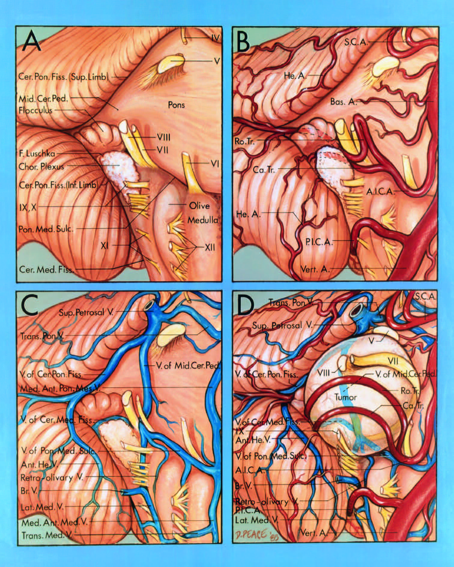 FIGURE 4.20. Neurovascular relationships on the brainstem side of an acoustic neuroma. Anterolateral view of the