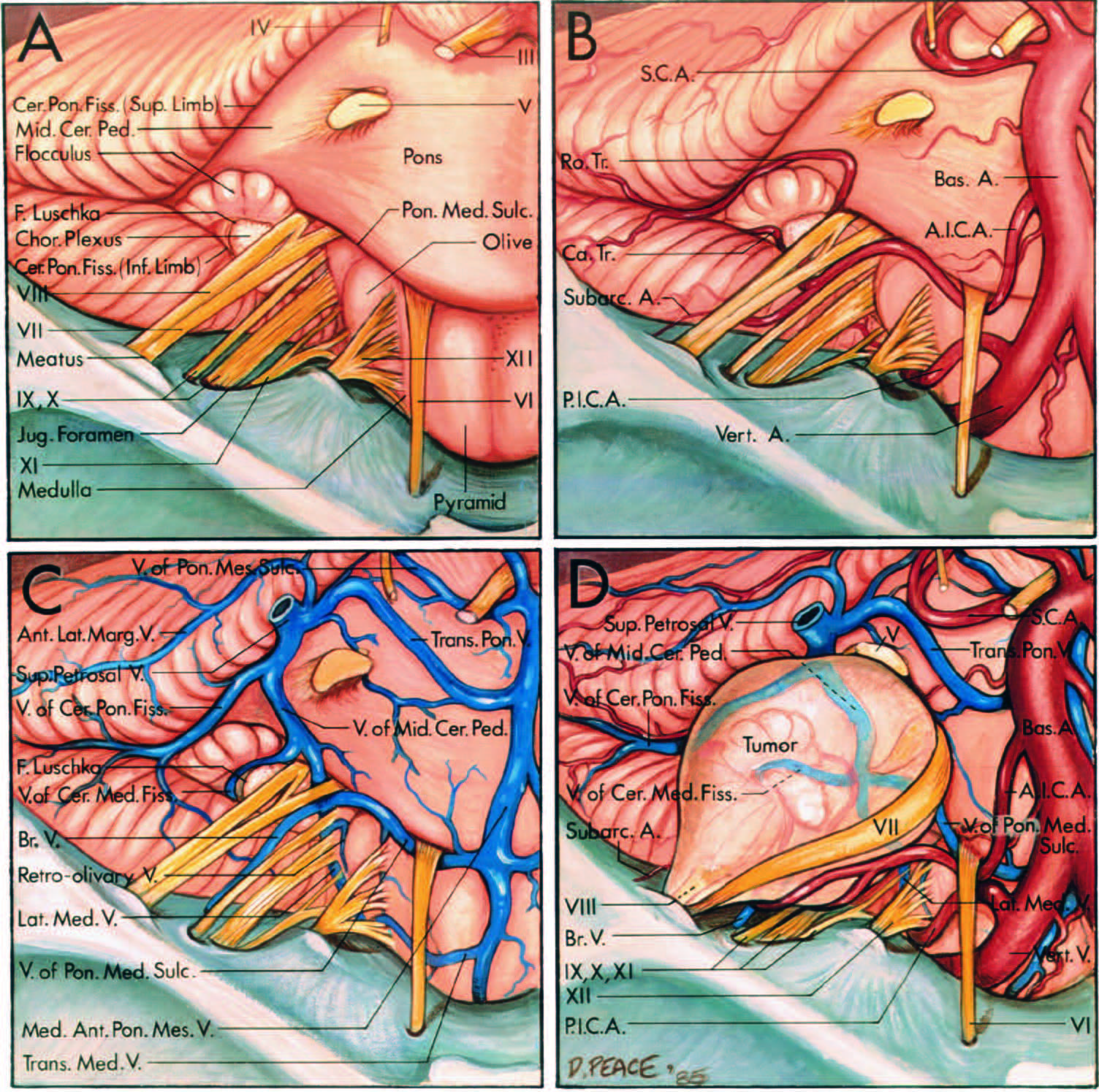 FIGURE 4.22. Neurovascular relationships on the brainstem side of anacoustic neuroma. Anterosuperiorviews. A, neural relationships. Thecerebrum and tentorium cerebellihave been removed, and the trigeminal, trochlear, and oculomotor nerveshave been divided to allow the brainstem to be displaced posteriorly toexpose the cerebellopontine anglefrom above. The facial and vestibulocochlear nerves arise at the lateralend of the pontomedullary sulcusanterior to the flocculus, rostral to theglossopharyngeal, vagus, and accessory nerves, and anterosuperior to thechoroid plexus protruding from theforamen of Luschka. The cerebellopontine fissure, formed where thecerebellum wraps around the lateralside of the pons and middle cerebellarpeduncle, has superior and inferiorlimbs. The foramen of Luschka opensinto the inferior limb near the facialand vestibulocochlear nerves. B, arterial relationships. The AICA arisesfrom the basilar artery, passes belowthe facial and vestibulocochlearnerves, gives rise to the subarcuateartery, and divides into a rostral and acaudal trunk. The rostral trunk passesabove the flocculus to course on themiddle cerebellar peduncle, and thecaudal trunk supplies the area below the flocculus. C, venous relationships. The veins converging on the junction of the facial nerve with the brainstem are the lateral medullary and retro-olivary veins, and the veins of the pontomedullary sulcus, cerebellomedullary fissure, and middle cerebellar peduncle. The median anterior pontomesencephalic vein ascends on the anterior surface of the brainstem, and the transverse pontine and transverse medullary veins cross the pons and medulla. The vein of the cerebellopontine fissure passes above the flocculus. The transverse pontine vein and the veins of the middle cerebellar peduncle and cerebellopontine fissure join to form one of the superior petrosal veins that empty into the superior petrosal sinus. A bridging vein passes from the side of the brainstem to the jugular foramen. T