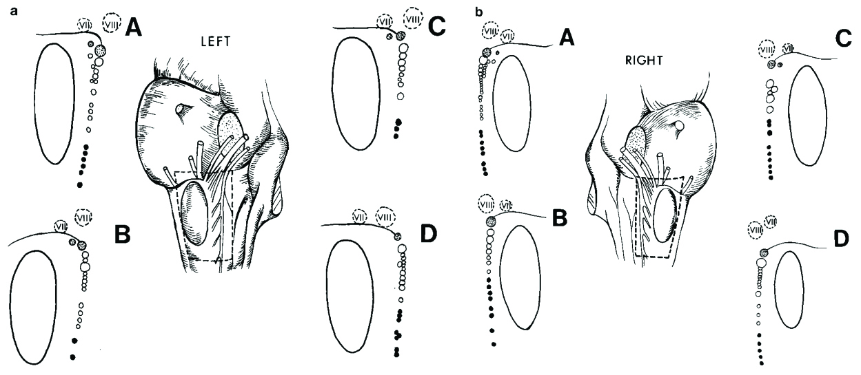 FIGURE 4.32. The broken line on the drawing of the lateral surface of the brainstem outlines the area shown in each diagram, demonstrating the brainstem origin and variations of the rootlet size of the glossopharyngeal, vagus, and spinal accessory nerves. The large ovoid structure is the inferior olive. The broken-line circles outline the origin of the facial and vestibulocochlear nerves. The most cephalad, shaded circles indicate glossopharyngeal rootlet origins, intermediate, open circles indicate vagal rootlet origins, and caudal, black circles outline spinal accessory rootlet origins. The glossopharyngeal nerve usually originates as one large rootlet, the vagus as a series of large and small rootlets, and the spinal accessory as a series of small rootlets. Top, note the small ventral rootlets of the glossopharyngeal nerve in A, B, and C and the small ventral rootlet between the glossopharyngeal and vagus nerves in A. The glossopharyngeal rootlet is larger than the rostral rootlet of the vagus nerve in all except D, in which the rostral vagal rootlet is larger than the glossopharyngeal nerve. Bottom, note the wide separation of the origin of the glossopharyngeal and vagus nerves in C, the small ventral rootlet of the glossopharyngeal nerve in C, and the small ventral rootlets of the glossopharyngeal and vagus nerves in A. The glossopharyngeal nerve is smaller than the upper vagal rootlet in A and D. (From, Rhoton AL Jr, Buza R: Microsurgical anatomy of the jugular foramen. J Neurosurg 42:541–550, 1975 [39].)