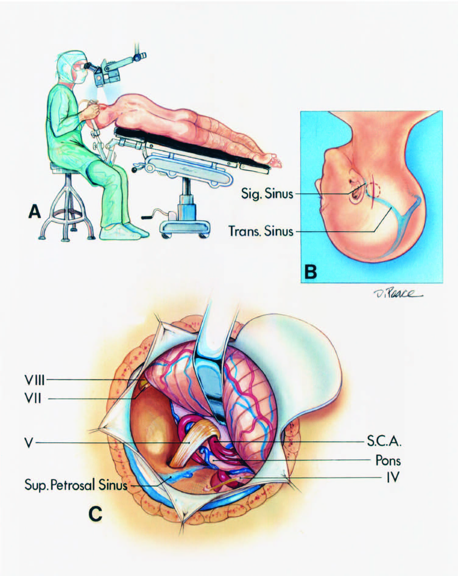 FIGURE 4.8. Retrosigmoid approach to the trigeminal nerve for a microvascular decompression operation. A, (upper left), the patient is positioned in the three-quarter prone position. The surgeon is seated at the head of the table. The table is tilted so that the feet are lower than the heart. B, the vertical paramedian incision crosses the asterion. The superolateral margin of the craniotomy is positioned at the junction of the transverse and sigmoid sinuses. C, the superolateral margin of the cerebellum is gently elevated using a brain spatula tapered from 10 mm at the base to 3 or 5 mm at the tip to expose the site at which the trigeminal nerve enters the pons. The brain spatula is advanced and aligned parallel to the superior petrosal sinus. The trochlear nerve is at the superior margin of the exposure and the facial and vestibulocochlear nerves are at the lower margin. The dura is tacked up to the adjacent muscles to maximize the exposure along the superolateral margin of the cerebellum. The main trunk of the SCA loops down into the axilla of the trigeminal nerve. (From, Rhoton AL Jr: Microsurgical anatomy of decompression operations on the trigeminal nerve, in Rovit RL, Murali R, Jannetta PJ (eds): Trigeminal Neuralgia. Baltimore, Williams & Wilkins, 1990, pp 165–200 [34].) S.C.A., superior cerebellar artery; Sig., sigmoid; Sup., superior; Trans., transverse.
