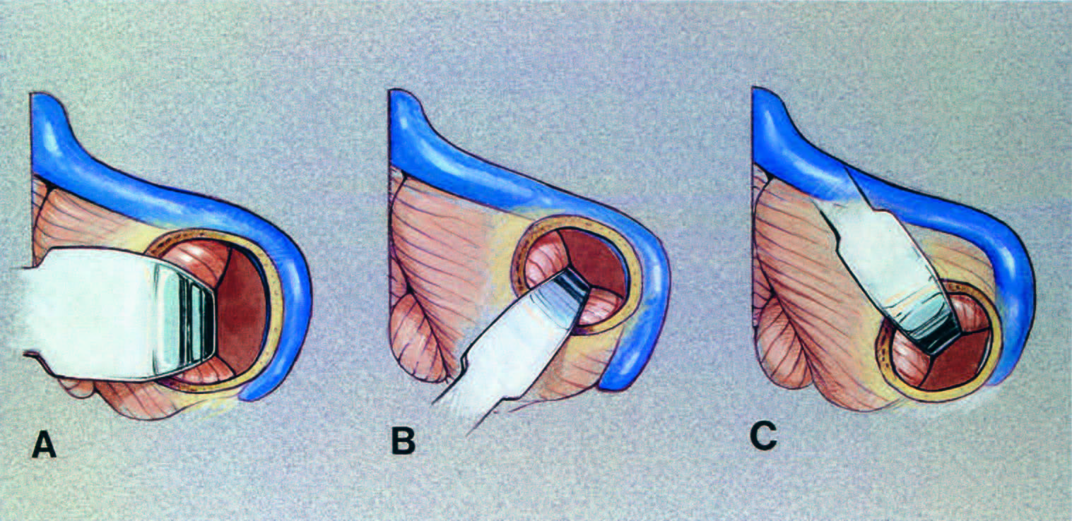 FIGURE 4.9. Direction of the application of brain spatulas for surgery in the various compartments of the cerebellopontine angle. A, lateral exposure for a lesion in the midportion of the cerebellopontine angle, such as an acoustic neuroma. The site of the craniotomy below the transverse sinus and medial to the sigmoid sinus is shown for removing an acoustic neuroma or other lesion involving multiple neurovascular complexes. The spatula protects the lateral surface of the cerebellum after the cerebellum relaxes after the opening of the cisterns and removing cerebrospinal fluid. A brain spatula tapered from 20 or 25 mm at the base to 15 or 20 mm at the tip is commonly used during the removal of large tumors, and a spatula tapered from 15 mm at the base to 10 mm at the tip is used for small tumors. B, spatula application for exposing the upper neurovascular complex for a microvascular decompression operation for trigeminal neuralgia. A spatula tapered from 10 mm at the base to 3 or 5 mm at the tip is commonly selected. The spatula is placed parallel to the superior petrosal sinus. C, retractor application for the exposure of the lower neurovascular complex. This approach also is used in hemifacial spasm because the facial nerve root exit zone is located only a few millimeters above the glossopharyngeal nerve and the PICA is commonly a compressing vessel. A brain spatula tapered from 10 mm at the base to 3 or 5 mm at the tip is commonly used for operations for hemifacial spasm. (From, Rhoton AL Jr: Instrumentation, in Apuzzo MLJ (ed): Brain Surgery: Complication Avoidance and Management. New York, Churchill-Livingstone, 1993, vol 2, pp 1647–1670 [36].)
