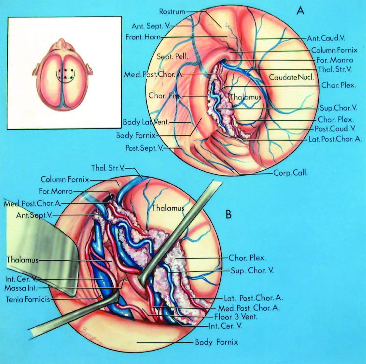 FIGURE 5.7. Transchoroidal approach directed through the body portion of the choroidal fissure using an opening through the corpus callosum. The site of the scalp incision and bone flap are shown in the inset. A, operative exposure of the frontal horn and body of the right lateral ventricle. The choroidal fissure lies deep to the choroid plexus. Structures in the wall of the lateral ventricle include the thalamus, caudate nucleus fornix, foramen of Monro, septum pellucidum, and the rostrum of the corpus callosum. Vascular structures that converge on the choroidal fissure include the medial and lateral posterior choroidal arteries and the anterior and posterior septal, anterior and posterior caudate, superior choroidal, and thalamostriate veins. B, the choroidal fissure has been opened by incising along the tenia fornicis. The layers of tela choroidea in the roof of the third ventricle have been opened and the massa intermedia and interior and floor of the third ventricle have been exposed by separating the internal cerebral veins. The medial posterior choroidal arteries course around the internal cerebral veins. A., artery; Ant., anterior; Call., callosum; Caud., caudate; Cer., cerebral; Chor., choroid, choroidal; Fiss., fissure; For., foramen; Front., frontal; Int., intermedia, internal; Lat., lateral; Med., medial; Nucl., nucleus; Pell., pellucidum; Plex., plexus; Post., posterior; Sept., septal, septum; Sup., superior; Thal. Str., thalamostriate; V., vein; Vent., ventricle. (From, Nagata S, Rhoton AL Jr, Barry M: Microsurgical anatomy of the choroidal fissure. Surg Neurol 30:3–59, 1988 [15].)