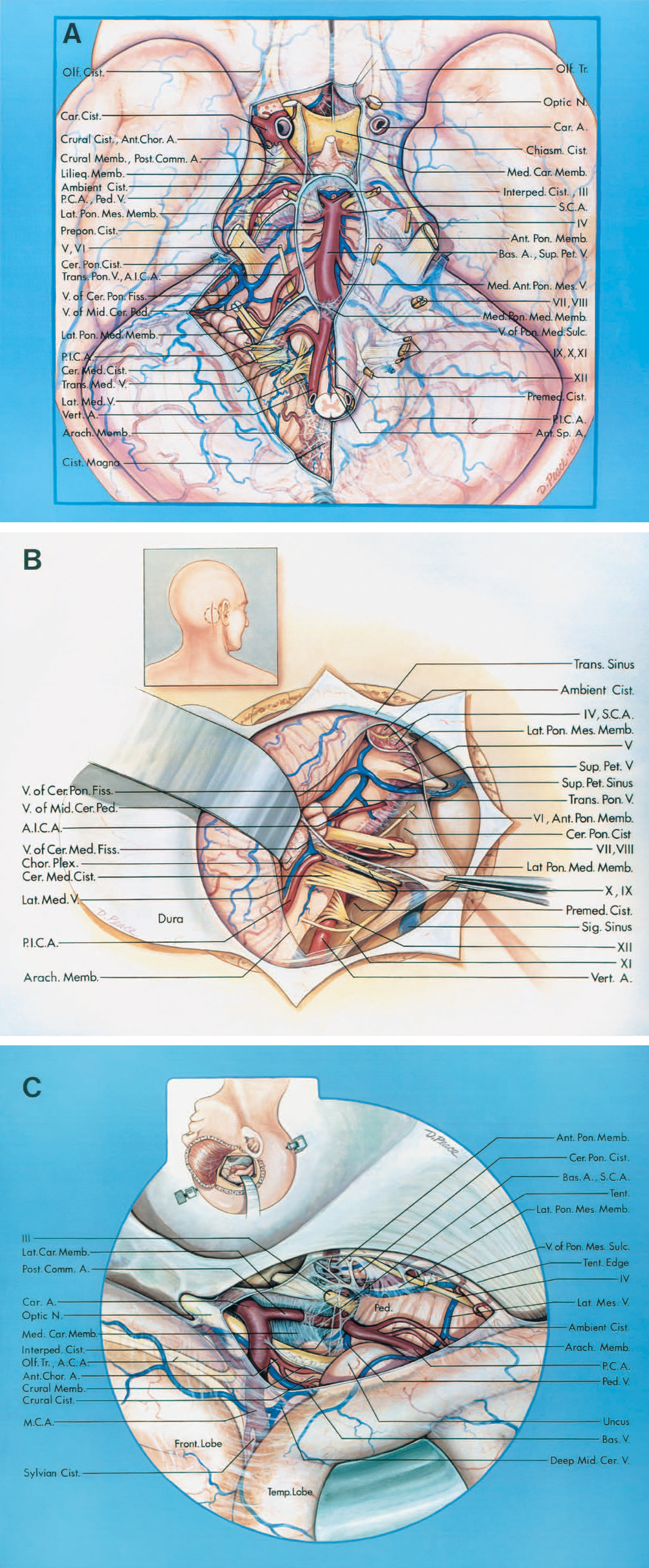 FIGURE 10.2. A. Anterior view. The arachnoid membrane has been removed to expose the following cisterns: olfactory, carotid, chiasmatic, ambient, crural, interpeduncular, prepontine, premedullary, cerebellopontine, and cerebellomedullary and the cisterna magna. The oculomotor nerves course in an arachnoidal intersection situated in the junction of the walls of the carotid, chiasmatic, prepontine, interpeduncular, and cerebellopontine cisterns. The medial carotid membrane separates the carotid and chiasmatic cisterns. The crural membrane separates the crural and ambient cisterns. The anterior pontine membrane separates the prepontine and cerebellopontine cisterns. The lateral pontomesencephalic membrane separates the ambient and cerebellopontine cisterns. The medial pontomedullary membrane separates the prepontine and premedullary cisterns, and the lateral pontomedullary membrane separates the cerebellopontine and cerebellomedullary cisterns. The interpeduncular cistern is situated between the diencephalic and mesencephalic leaves of Liliequist's membrane. The bifurcation of the basilar artery is in the interpeduncular cistern. The carotid and posterior communicating arteries course within the carotid cisterns. The anterior choroidal artery arises in the carotid cistern and courses through the crural cistern. The optic nerves and chiasm and the stalk of the pituitary gland are situated in the chiasmatic cistern. The olfactory cisterns enclose the olfactory tracts. The SCAs arise at the junction of the interpeduncular and prepontine cisterns. The PCAs and trochlear nerves course through the ambient cisterns. The AICAs arise in the prepontine cistern. The premedullary cistern contains the hypoglossal nerves and vertebral arteries and the origin of the PICAs and anterior spinal arteries. The abducens, trigeminal, facial, and vestibulocochlear nerves and a segment of the SCA and AICA pass through the cerebellopontine cisterns. The cerebellomedullary cisterns contain the glossopharyngeal, vagus, and accessory nerves and a segment of the PICAs. The veins that course through the cisterns include the peduncular, transverse pontine, transverse medullary, lateral medullary, and median anterior pontomesencephalic veins and the veins of the pontomedullary sulcus, cerebellopontine fissure, and middle cerebellar peduncle. The veins in the cerebellopontine or cerebellomedullary cisterns join to form the superior petrosal veins. B. Cisterns exposed through a unilateral suboccipital craniectomy. The insert (upper left) shows the site of the skin incision (solid line) and craniectomy (interrupted line). The arachnoid membrane forming the posterior wall of the cerebellopontine and cerebellomedullary cisterns has been opened. The anterior pontine membrane is medial to the abducens nerve. The lateral pontomedullary membrane separates the cerebellopontine and cerebellomedullary cisterns. The flocculus and choroid plexus protrude into the junction of the cerebellomedullary and cerebellopontine cisterns near the foramen of Luschka. C. Cisterns in the tentorial incisura. View through a right frontotemporal craniotomy. The insert shows the direction of view. The inferior surface of the temporal lobe has been elevated. The arachnoid membrane medial to the free edge of the tentorium has been opened to expose the carotid, ambient, crural, cerebellopontine, interpeduncular, and sylvian cisterns. The lateral carotid membrane is on the lateral side of the carotid artery, and the medial carotid membrane separates the carotid and chiasmatic cisterns. The crural membrane extends from the optic tract to the uncus and between the origins of the posterior communicating and anterior choroidal arteries. A., artery; A.C.A., anterior cerebral artery; Ant., anterior; Arach., arachnoid; Bas., basilar; Car., carotid; Cer., cerebellar; Cer. Med., cerebellomedullary; Cer. Pon., cerebellopontine; Chiasm., chiasmatic; Chor., choroid; Cist., cistern, cisterna; Comm., communicating; Fiss., fissure; Front., frontal; Interped., interpeduncular; Lat., lateral; Lilieq., Liliequist's; M.C.A., middle cerebral artery; Med., medial, medullary; Memb., membrane; Mid., middle; N., nerve; Olf., olfactory; P.C.A., posterior cerebral artery; Ped., peduncular; Pet., petrosal; P.I.C.A., posteroinferior cerebellar artery; Pon., pontine; Pon. Med., pontomedullary; Pon. Mes., pontomesencephalic; Premed., premedullary; Prepon., prepontine; S.C.A., superior cerebellar artery; Sig., sigmoid; Sp., spinal; Sulc., sulcus; Temp., temporal; Tent., tentorium; Tr., trunk; Trans., transverse; V., vein; Vert., vertebral.