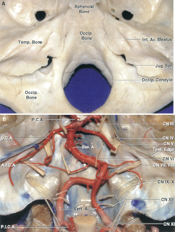 Figure 1.1. A, superior view of the posterior cranial fossa. The osseus walls of the posterior fossa are formed by the occipital, temporal, and sphenoid bones. The fossa is bounded in front by the dorsum sellae and posterior part of the sphenoid bone and the clival part of the occipital bone; behind by the lower portion of the squamosal part of the occipital bone; and on each side by the petrous and mastoid parts of the temporal bone, and the lateral part of the occipi- tal bone. One small part above the temporal bone is formed by the inferior angle of the parietal bone. B, nerves and arteries of the posterior fossa. Only 2 of the 12 pairs of cra- nial nerves course entirely outside the posterior fossa. The tentorium, which is attached along the petrous ridges, roofs the posterior fossa. A., artery; Ac., acoustic; A.I.C.A., antero- inferior cerebellar artery; Bas., basilar; CN, cranial nerve; For., foramen; Int., internal; Jug., jugular; Occip., occipital; P.C.A., posterior cerebral artery; P.I.C.A., posteroinferior cer- ebellar artery; S.C.A., superior cerebellar artery; Temp., tem- poral; Tent., tentorial; Vert., vertebral.