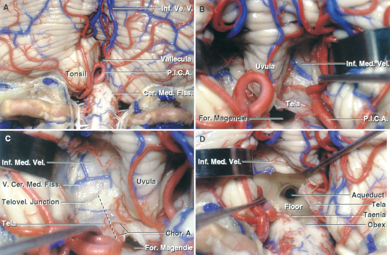 Figure 1.10. A–D. Telovelar approach to the fourth ventricle. A, the cerebellomedullary fissure extends upward between the tonsils posteriorly and the medulla anteriorly. The vallecula opens between the tonsils into the fourth ventricle. B, both tonsils have been retracted laterally to expose the inferior medullary velum and tela choroidea that form the lower part of the ventricular roof. The nodule of the vermis, on which the inferior medullary arises, is hidden deep to the uvula. C, enlarged view of the left half of the cerebellomedullary fissure. The choroidal arteries course along the tela choroidea from which the choroid plexus projects into the roof of the fourth ventricle. The vein of the cerebellomedullary fissure, which crosses the inferior medullary velum, is the largest vein in the cerebellomedullary fissure. The interrupted line shows the site of the incision in the tela to provide the exposure seen in the next step. The telovelar junction is the line of attachment of the tela to the velum. D, the tela choroidea has been opened extending from the foramen of Magendie to the junction with the inferior medullary velum. The uvula has been displaced to the right side to provide this view extending from the aqueduct to the obex. A., artery; Cer.Med., cerebellomedullary; Chor., choroidal; Fiss., fissure; For., foramen; Inf., inferior; Med., medul- lary; P.I.C.A., posteroinferior cerebellar artery; Telovel., telovelar; V., vein; Ve., vermian; Vel., velum.