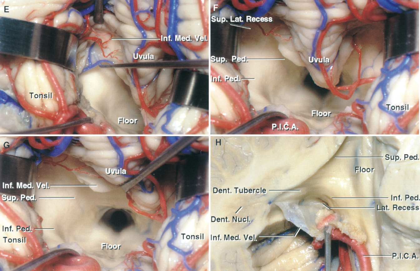 Figure 1.10. E–H. Telovelar approach to the fourth ventricle. E, the tip of a nerve hook placed inside the fourth ventricle is seen through the paper-thin inferior medullary velum. F, the left half of the inferior medullary velum has been divided to expose the superolateral recess and the ventricular surface formed by the superior and inferior peduncles. G, the uvula has been retracted to the right to expose all of the floor and much of the roof of the ventricle. H, the right half of the cerebellum was removed by dividing the vermis sagittally and the cerebellar peduncles transversely. The tonsil has been removed and the inferior medullary velum and the cranial loop of the PICA have been displaced downward to expose the opening into the lateral recess. The dentate nucleus forms a prominence, the dentate tubercle, in the superolateral recess of the roof of the fourth ventricle near the site of attachment of the inferior medullary velum. Dent., dentate; Inf., inferior; Lat., lateral; Med., medullary; Nucl., nucleus; P.I.C.A., posteroinferior cerebellar artery; Ped., peduncle; Sup., superior; Vel., velum.