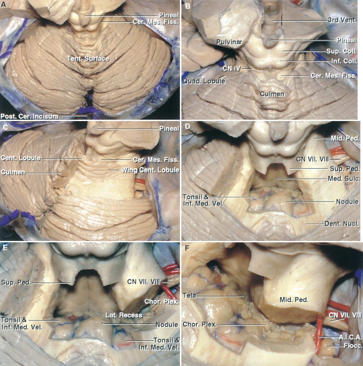 Figure 1.3. Tentorial surface and cerebellomesencephalic fissure. A, the tentorial surface faces the tentorium, which has been removed. The surface slopes downward from the apex to the posterior and lateral margins. The upper part of the tentorial surface surrounds the posterior half of the midbrain and forms the posterior lip of the cerebellomesencephalic fissure. The anterior cerebellar incisura, the notch where the brainstem fits into the anterior part of the tentorial surface, is located anteriorly and the posterior cerebellar incisura, the notch where the falx cerebelli fits into the cerebellum, is located posteriorly. B, enlarged view of the cerebellomesencephalic fissure, which extends downward between the midbrain and the cerebellum. The superficial part of the posterior lip is formed by the culmen in the midline and the quadrangular lobule laterally. The quadrigeminal cistern extends caudally from the pineal into the cerebellomesencephalic fissure. C, the culmen has been removed to expose the central lobule and its wings, which form part of the posterior lip of the cerebellomesencephalic fissure. D, the central lobule and its wings, the lingula, the superior medullary velum, and medial part of the superior cerebellar peduncles have been removed to expose the fourth ventricle. The lower half of the roof is formed in the midline by the nodule and laterally by the inferior medullary velum, which passes laterally above, but is separated from the rostral pole of the tonsils by the cerebellomedullary fissure. E, some of the middle peduncle has been removed to expose the choroid plexus extending through the lateral recess into the cerebellopontine angle below the facial and vestibulocochlear nerves. F, oblique view of the lower half of the roof formed by the inferior medullary velum and the tela choroidea in which the choroid plexus arises. The inferior medullary velum arises on the surface of the nodule and extends laterally to blend into the flocculus and, with 