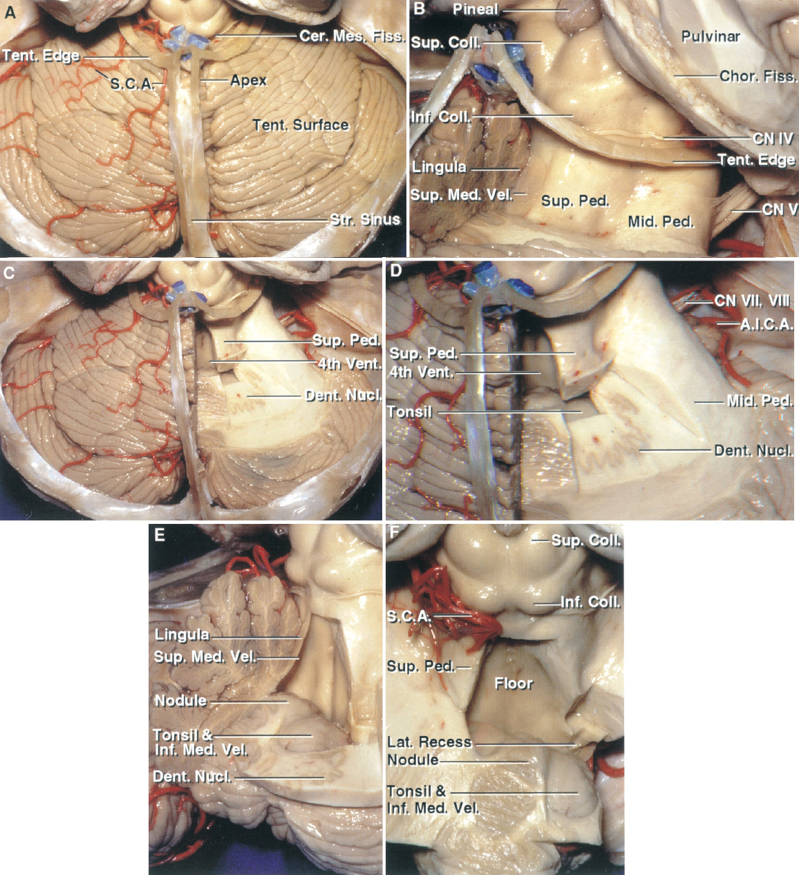 Figure 1.4 Tentorial surface and cerebellomesencephalic fissure. A, the tentorial cerebellar surface faces the tentorium and slopes downward from its apex located below the tentorial apex. The cerebellomesencephalic fissure extends forward between the cerebellum and midbrain. This surface, in which the vermis is the highest part, differs from the suboccipital surface in which the vermis is folded into a deep cleft, the incisura, between the cerebellar hemispheres. The straight sinus and tentorial edge have been preserved. The SCA exits the cerebellomesencephalic fissure and supplies the ten- torial surface. B, the right half of the posterior lip of the cerebellomesencephalic fissure has been removed. The anterior wall of the fissure is formed in the midline by the collicular plate and lingula, and laterally by the superior cerebellar peduncles. The middle cerebellar peduncle wraps around the lateral surface of the superior peduncle. The trochlear nerve arises below the inferior colliculi. C, the right half of the lingula and superior medullary velum have been removed to expose the fourth ventricle. Additional white matter has been removed below the right superior peduncle to expose the dentate nucleus in which the superior peduncular fibers arise. D, enlarged view. The dentate nucleus appears to wrap around the rostral pole of the tonsil. E, oblique view into the fourth ventricle. Additional cerebellum has been removed to expose the nodule and rostral pole of the tonsil. The dentate nucleus wraps around the rostral pole of the tonsil. The upper half of the roof is formed by the superior medullary velum, which has the lingula layered on its outer surface. The upper part of the lower half of the roof is formed by the nodule in the midline and by the inferior medullary velum laterally. The inferior medullary velum, an almost transparent membrane, stretches laterally across the upper pole of the tonsil. F, the left half of the upper part of the roof has been removed. Th
