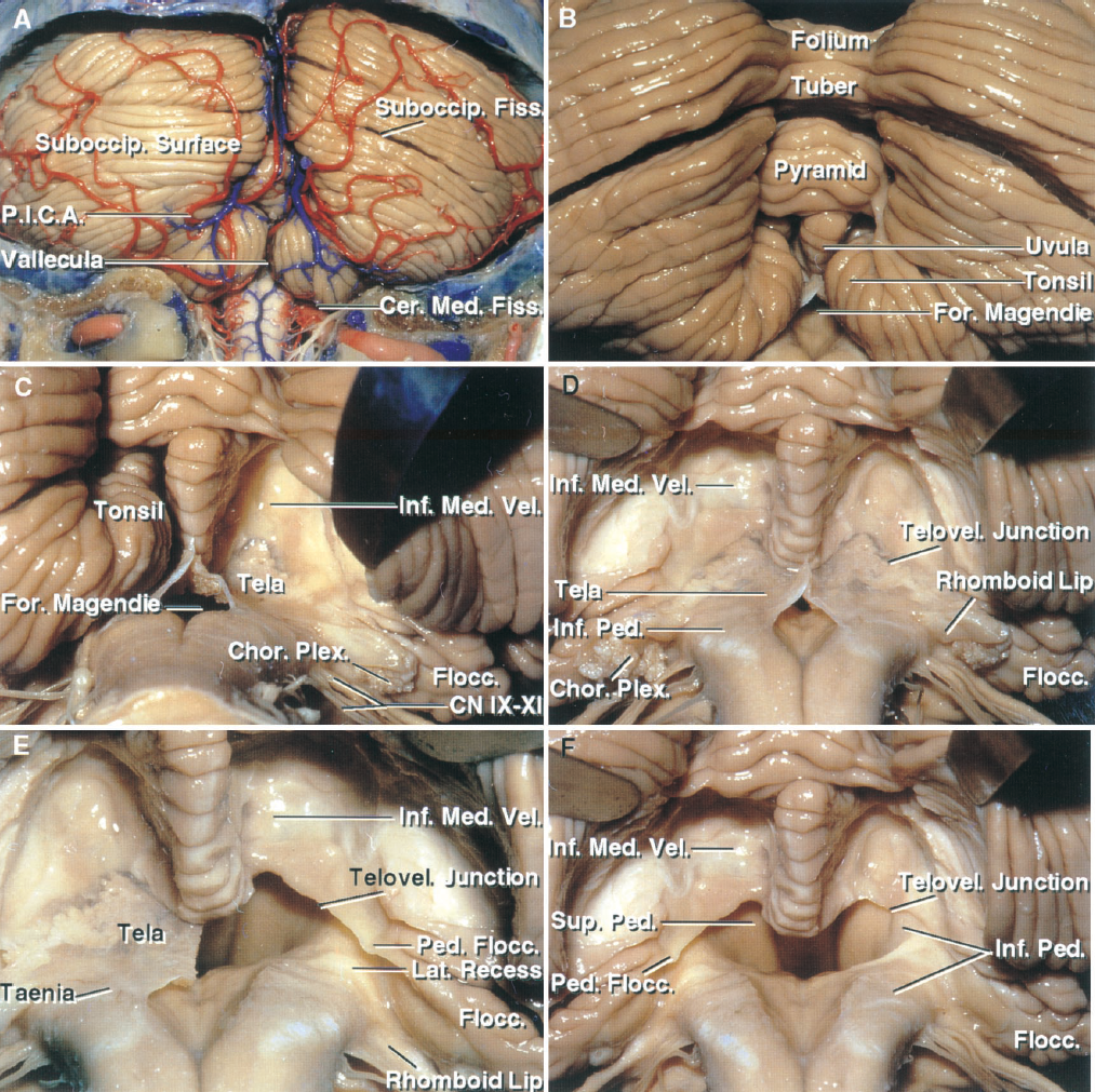 Figure 1.5. Suboccipital surface of the cerebellum and the cerebellomedullary fissure. A, the suboccipital surface is located below and between the sigmoid and lateral sinuses and is the surface that is exposed in a wide suboccipital craniectomy. The vermis sits in a depression, the posterior cerebellar incisura, between the hemispheres. The cerebellomedullary fissure extends superiorly between the cerebellum and medulla along the inferior half of the ventricular roof. The vallecula extends upward between the tonsils and communicates through the foramen of Magendie with the fourth ventricle. The PICA supplies the suboccipital surface. B, enlarged view. The lower parts of the vermis behind the ventricle are the pyramid and uvula. C, the right tonsil has been removed to expose the lower part of the roof formed by the inferior medullary velum and tela choroidea. The nodule on which the velum arises is hidden in front of the uvula. The uvula hangs downward between the tonsils, thus mimicking the situation in the oropharynx. The choroid plexus arises on the inner surface of the tela and extends through the foramen of Luschka behind the glossopharyngeal and vagus nerve. The inferior medullary velum arises on the surface of the nodule, drapes across the superior pole of the tonsil, and blends into the flocculus laterally. D, both tonsils have been removed to expose the inferior medullary velum and tela choroidea bilaterally. The telovelar junction is the junction between the velum and tela. The cerebellomedullary fissure extends upward between the rostral pole of the tonsil on one side and the tela choroidea and inferior medullary velum on the opposite side. The segment of the PICA passing through this cleft is called the telovelotonsillar segment. The rhomboid lip is a sheet-like layer of neural tissue attached to the lateral margin of the ventricular floor, which extends posterior to the glossopharyngeal and vagus nerves and joins the tela choroidea to form a pouch at th