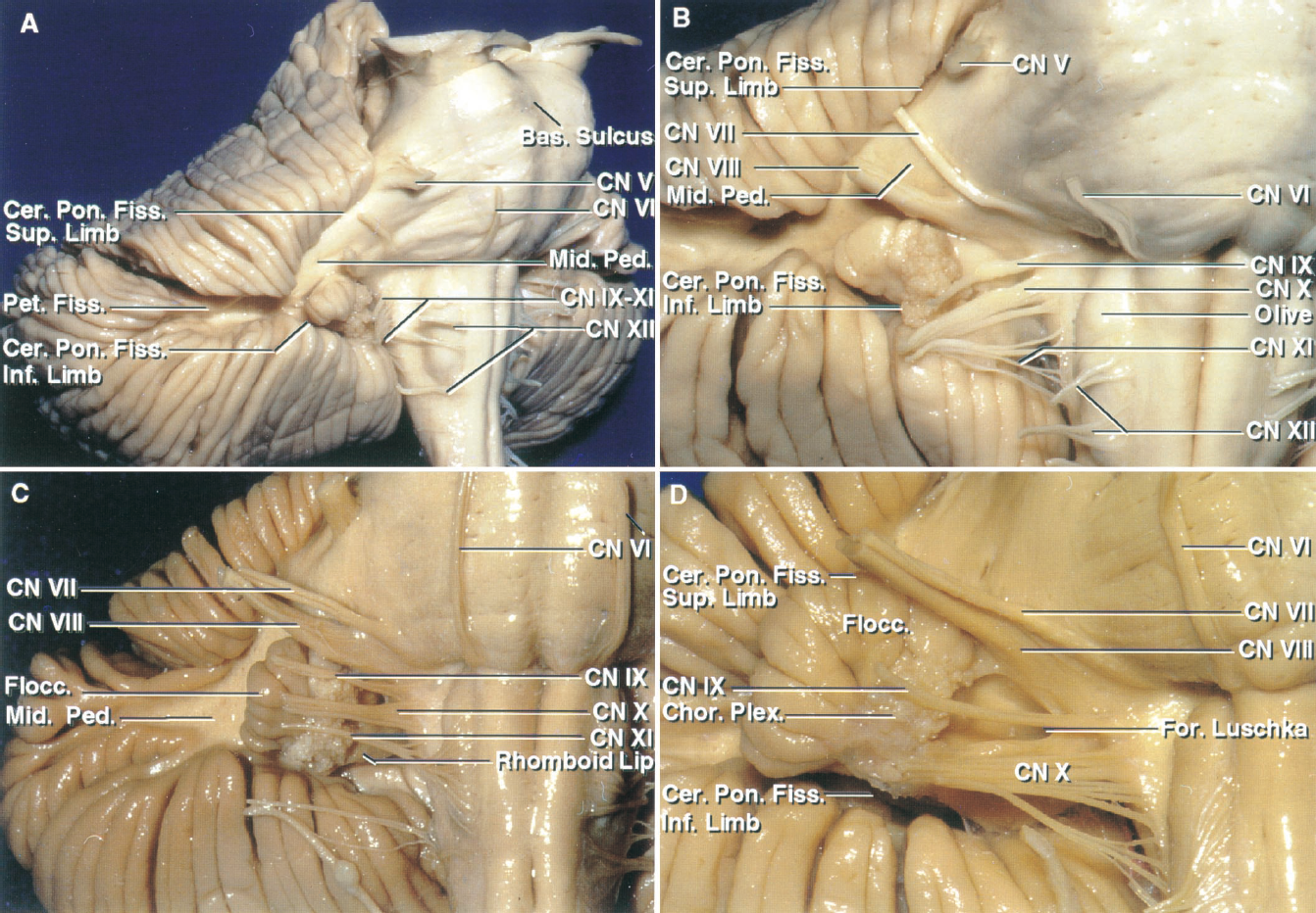 Figure 1.7. Brainstem, petrosal surface, and cerebellopontine fissure. A, oblique view. The petrosal surfaces of the cerebellum face forward toward the petrous bone and is the surface that is retracted to expose the cerebellopontine angle. The cerebellopontine fissure, which might also be referred to as the cerebellopontine angle, is a V-shaped fissure formed where the cerebellum wraps around the pons and middle cerebellar peduncle. The superior and inferior limbs meet laterally at the apex located at the anterior end of the petrosal fissure that divides the petrosal surface into superior and inferior parts. Cranial nerves V through XI arise within the margins of the cerebellopontine fissure. The flocculus and choroid plexus extend laterally from the foramen of Magendie above the lower limb of the fissure. The basilar sulcus is a shallow longitudinal groove on the anterior surface of the pons, which accommodates the basilar artery. B, enlarged view. The petrosal fissure extends laterally from the apex of the cerebellopontine fissure. The abducens nerve arises in the medial part of the pontomedullary sulcus rostral to the medullary pyramids. The facial and vestibulocochlear nerves arise just rostral to the foramen of Luschka near the flocculus at the lateral end of the pontomedullary sulcus. The hypoglossal nerves arise anterior to and the glossopharyngeal, vagus, and accessory nerves arise posterior to the olives. Cho- roid plexus protrudes from the foramen of Luschka behind the glossopharyngeal and vagus nerves. C, enlarged view of another brain- stem. The facial and vestibulocochlear nerves join the brainstem 2 or 3 mm rostral to the glossopharyngeal nerve on a line drawn dorsal to the olive along the origin of the rootlets of the glossopharyngeal, vagus, and accessory rootlets. The rhomboid lip, a thin neural membrane in the ventral margin of the lateral recess, extends laterally behind the glossopharyngeal, vagus, and accessory nerves with the choroid plexus. D,