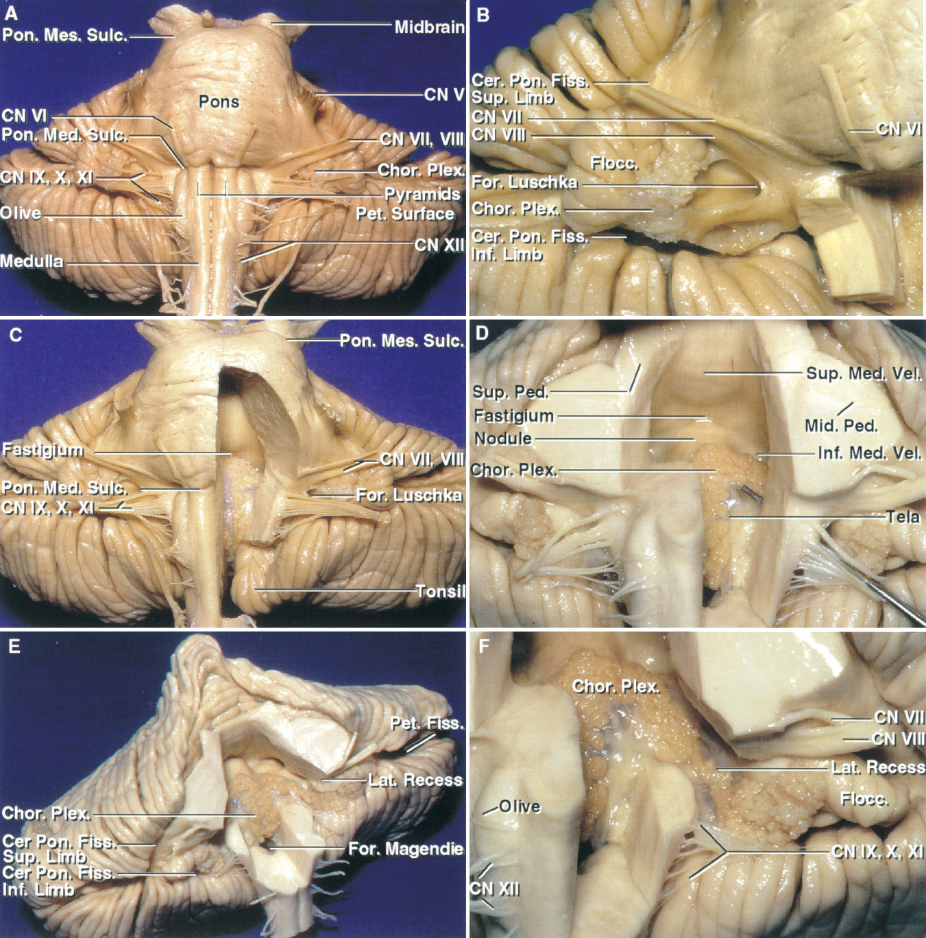 Figure 1.8. A–F. Brainstem, fourth ventricle, and petrosal cerebellar surface. Stepwise anterior exposure. A, the petrosal surface faces forward toward the posterior surface of the temporal bone. The fourth ventricle is located behind the pons and medulla. The midbrain and pons are separated by the pontomesencephalic sulcus and the pons and medulla by the pontomedullary sulcus. The trigeminal nerves arise from the midpons. The abducens nerve arises in the medial part of the pontomedullary sulcus, rostral to the medullary pyramids. The facial and vestibulocochlear nerves arise at the lateral end of the pontomedullary sulcus immediately rostral to the foramen of Luschka. The hypoglossal nerves arise anterior to the olives and the glossopharyngeal, vagus, and accessory nerves arise posterior to the olives. Choroid plexus protrudes from the foramen of Luschka behind to the glossopharyngeal and vagus nerves. B, right cerebellopontine angle following removal of some of the medulla. The foramen of Luschka opens into the cerebellopontine angle below the junction of the facial and vestibulocochlear nerves with the lateral end of the pontomedullary sulcus. Choroid plexus protrudes from the lateral recess and fora- men of Luschka behind the glossopharyngeal, vagus, and accessory nerves. The cerebellopontine fissure, a V-shaped fissure formed by the cerebellum wrapping around the pons and middle cerebellar peduncle, has a superior and inferior limb that define the margins of the cerebellopontine angle. The superior limb extends above the trigeminal nerve and the inferior limb passes below the flocculus and the nerves that pass to the jugular foramen. C, the part of the pons and medulla forming the left half of the floor of the ventricle has been removed to expose the fastigium, which divides the ventricular roof into superior and inferior parts. D, the right half of the pons has been removed to expose the upper half of the roof. The superior part of the roof is formed by the su