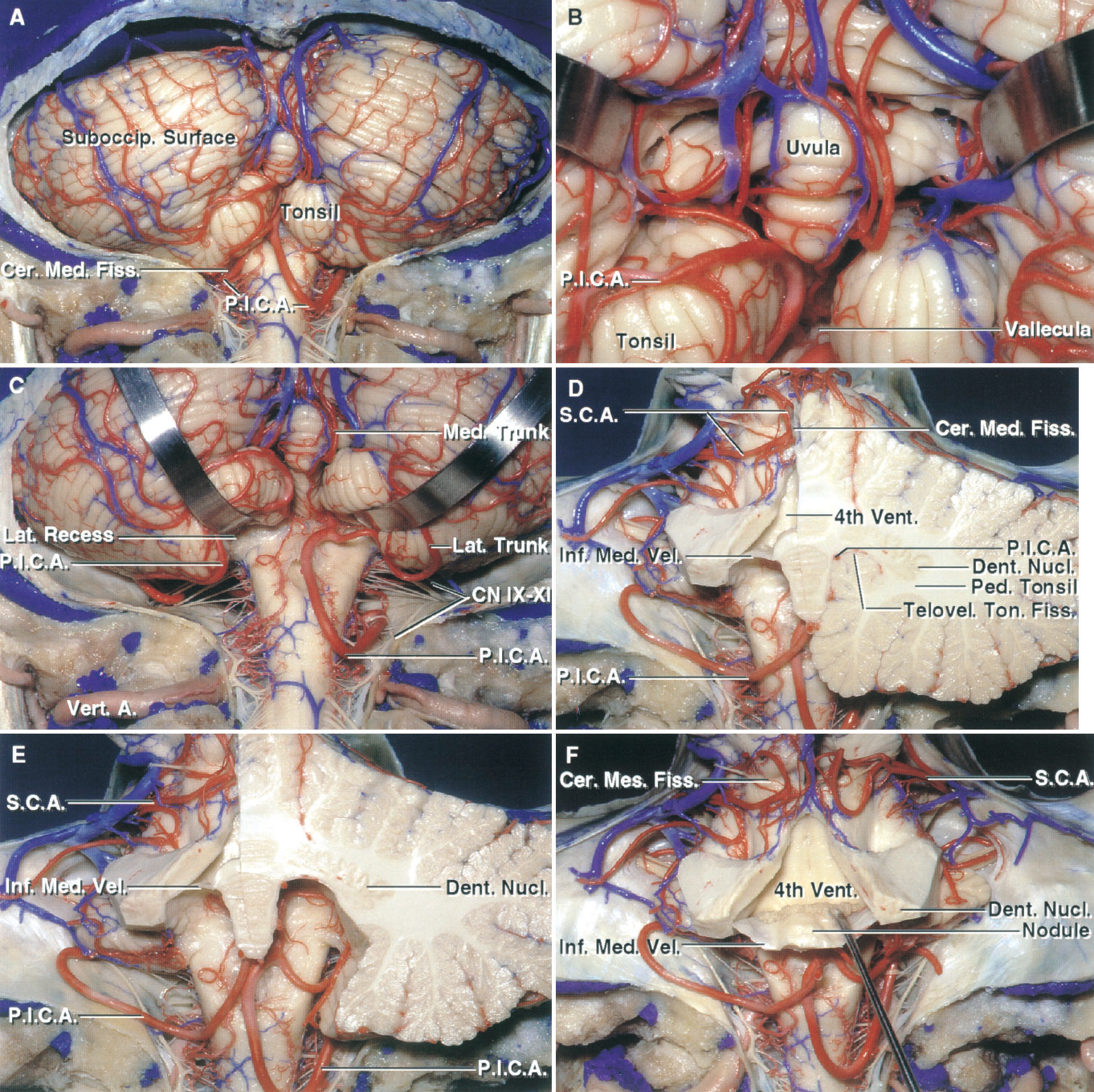 Figure 1.9. A–F. Posterior views. Stepwise dissection examining the relationships of the inferior medullary velum, dentate nucleus, tonsil, and the cerebellomedullary and cerebellomesencephalic fissures. A, the PICAs pass around the posterior medulla to reach the lower margin of the cerebellomedullary fissure. The left PICA courses around the lower pole of the tonsil. The right PICA descends well below the tonsil to the level of the foramen magnum before ascending along the medial tonsillar surface. B, the PICAs ascend between the tonsils and medulla to reach the interval between the tonsil and uvula and to supply the suboccipital surface. C, the posterior medullary segment of the right PICA divides into a medial trunk supplying the vermis and paravermian area and a lateral trunk supplying the hemisphere. D, the cerebellum has been sectioned in an oblique coronal plane to show the relationship of the rostral pole of the tonsil to the inferior medullary velum and dentate nucleus. The dentate nucleus is located above the posterolateral part of the ventricular roof, near the fastigium, where it wraps around, and is separated from, the rostral pole of the tonsil by the inferior medullary velum. The left tonsil has been removed while preserving the left half of the inferior medullary velum. The SCAs course in the cerebellomesencephalic fissure. The PICA passes between the walls of the cerebellomedullary fissure formed above by the inferior medullary velum and below by the upper pole of the tonsil. E, both tonsils have been removed. The PICAs ascend through the cleft between the inferior medullary velum and rostral pole of the tonsil. F, the superior part of the ventricular roof has been removed and the nodule and the inferior medullary velum has been folded downward to expose the floor. A., artery; Cer. Med., cerebellomedullary; Cer.Mes., cerebellomesencephalic; CN, cranial nerve; Dent., dentate; Fiss., fissure; Inf., inferior; Lat., lateral; Med., medial, medullary; Nuc