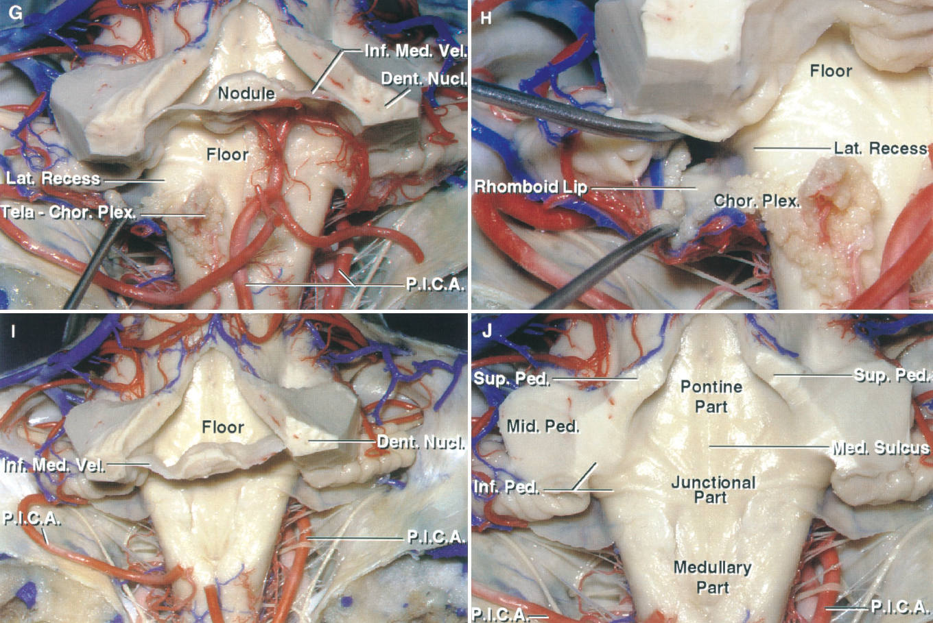 Figure 1.9. G–J. Posterior views. G, the tela choroidea, in which the choroid plexus arises, has been folded downward to expose the lower part of the floor. H, enlarged view of the left lateral recess and the foramen of Luschka. The rhomboid lip is a thin layer of neural tissue, which extends laterally from the anterior margin of the lateral recess and, with the tela choroidea, forms a pouch at the outer edge of the lateral recess. Choroid plexus extends through the lateral recess and foramen of Luschka into the cerebellopontine angle. I, the tela has been removed to expose the parts of the floor located above and below the nodule and inferior medullary velum. J, the nodule and the inferior medullary velum have been removed to expose the full length of the floor, which is divided in the midline by the median sulcus and craniocaudally into pontine, junctional, and medullary parts. The superior and inferior peduncles face the ventricular surface. The middle cerebellar peduncle is separated from the ventricular surface by the superior and inferior peduncles. Chor., choroid; Dent., dentate; Inf., inferior; Lat., lateral; Med., median, medullary; Mid., middle; Nucl., nucleus; P.I.C.A., posteroinferior cerebellar artery; Ped., peduncle; Plex., plexus; Sup., superior; Vel., velum.