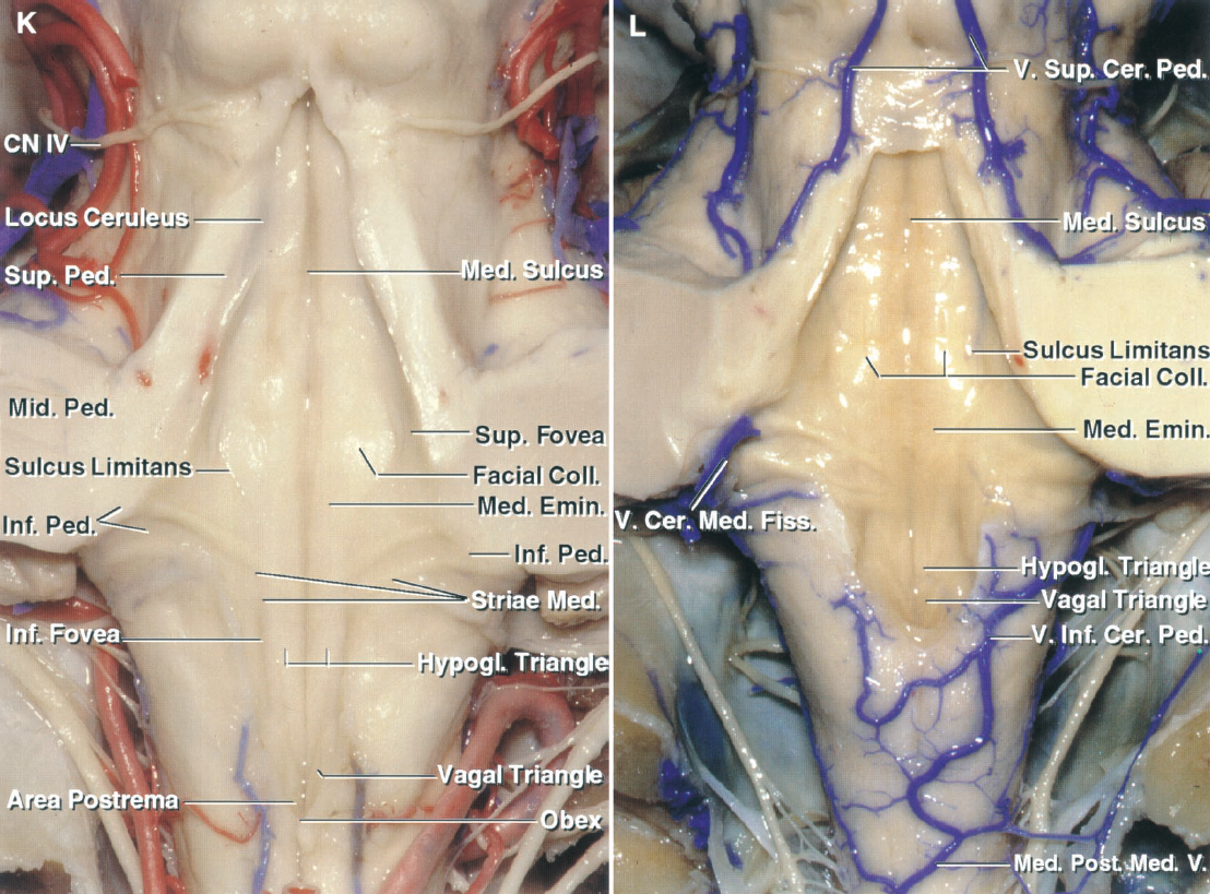 Figure 1.9. K and L. Posterior views. K, enlarged view of the floor of the fourth ventricle. The median sulcus divides the floor longitudinally in the midline. Each half of the floor is divided longitudinally by an irregular sulcus, the sulcus limitans, which deepens lateral to the facial colliculus and hypoglossal triangles to form the superior and inferior foveae. A darkened area of cells, the locus ceruleus, is located at the rostral end of the sulcus limitans. The stria medullaris crosses the floor at the level of the lateral recess. The hypoglossal and vagal nuclei and the area postrema are stacked one above the other in the lower part of the floor to give the configuration of a pen nib and, thus, the area is referred to as the calamus scriptorius. L, another fourth ventricular floor. The paired veins of the superior cerebellar peduncle course on the outer surface of the superior peduncles and join superiorly to form the vein of the cerebellomesencephalic fissure. The median posterior medullary vein ascends on the medulla and splits into the paired veins of the inferior cerebellar peduncle at the caudal margin of the floor. That left vein is hypoplastic. The left vein of the cerebellomedullary fissure passes along the lateral recess and ascends to join the petrosal group of veins in the cerebellopontine angle. Cer.Med., cerebellomedullary; Cer., cerebellar; CN, cranial nerve; Coll., colliculus; Emin., eminence; Fiss., fissure; Hypogl., hypoglossal; Inf., inferior; Med., median, medullary; Mid., middle; Ped., peduncle; Post., posterior; Striae Med., Stria medullaris; Sup., superior; V., vein.