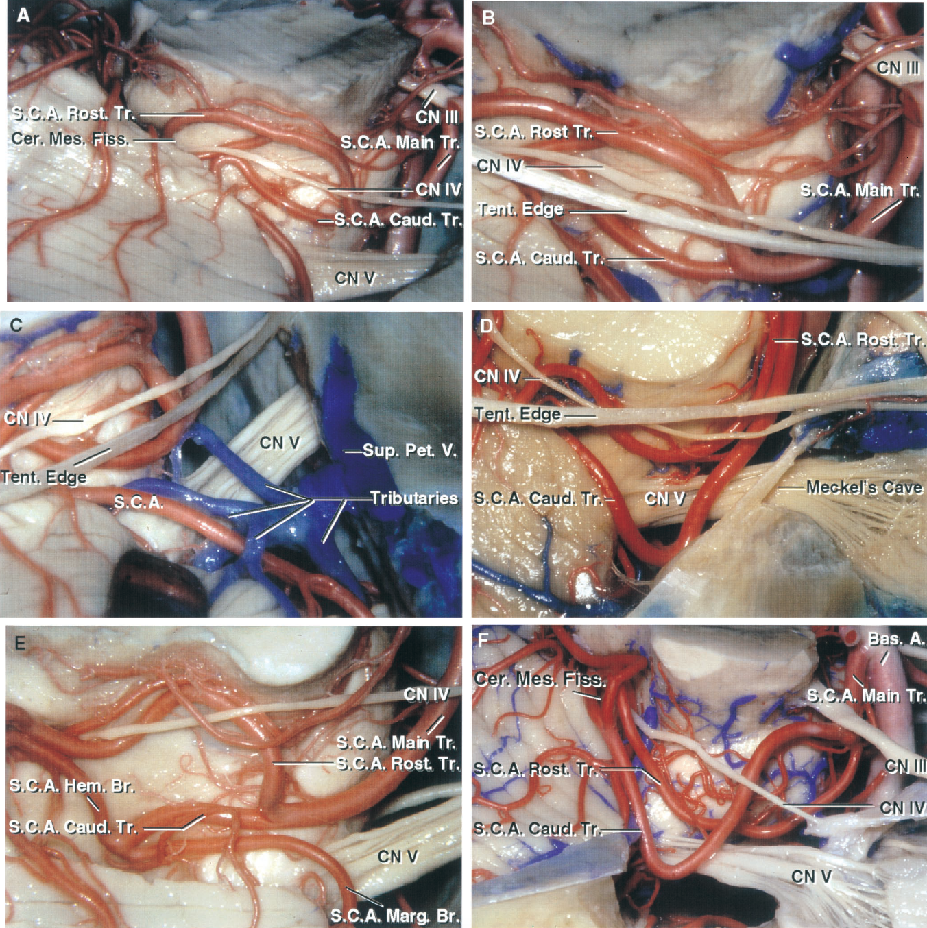 FIGURE 2.10. SCA trunks. A, the main trunk of the SCA bifurcates above the trigeminal nerve into a rostral and caudal trunk. The main trunk passes below the trochlear nerve and tentorial edge at the anterolateral brainstem, but distally the rostral trunk passes above and the caudal trunk below the trochlear nerve and tentorial edge. B, view after removing the tentorial edge. The most common compression of the trigeminal nerve in trigeminal neuralgia is by the SCA at the junction of the main with the rostral and caudal trunks, which in this case is located above the trigeminal nerve. Both trunks dip into the cerebellomesencephalic fissure before reaching the tentorial surface. C, this superior petrosal vein has multiple tributaries that have become entwined with the branches of the SCA. These veins often need to be coagulated and divided in reaching the trigeminal nerve. The SCA could be obliterated in coagulating the tributaries of the superior petrosal vein unless care is taken to carefully separate the arterial trunks from the venous tributaries. D, this SCA has a duplicate origin in which both the rostral and caudal trunks arise directly from the basilar artery. Both trunks, at the anterolateral brainstem, pass below the tentorial edge and trochlear nerve and above the trigeminal nerve. At the posterolateral margin of the brainstem, the rostral trunk loops above the level of the trochlear nerve and tentorial edge. The caudal trunk rests against the posterior trigeminal root as the nerve passes below the anterior edge of the tentorium to enter Meckel's cave. E, another SCA. The main trunk passes above the trigeminal nerve before bifurcating into rostral and caudal trunks. The main trunk courses below the trochlear nerve, but the rostral trunk loops upward medial to the nerve. The caudal trunk divides into a large hemispheric branch that supplies the tentorial surface and a marginal branch, which supplies some of the upper part of the petrosal surface. F, another S