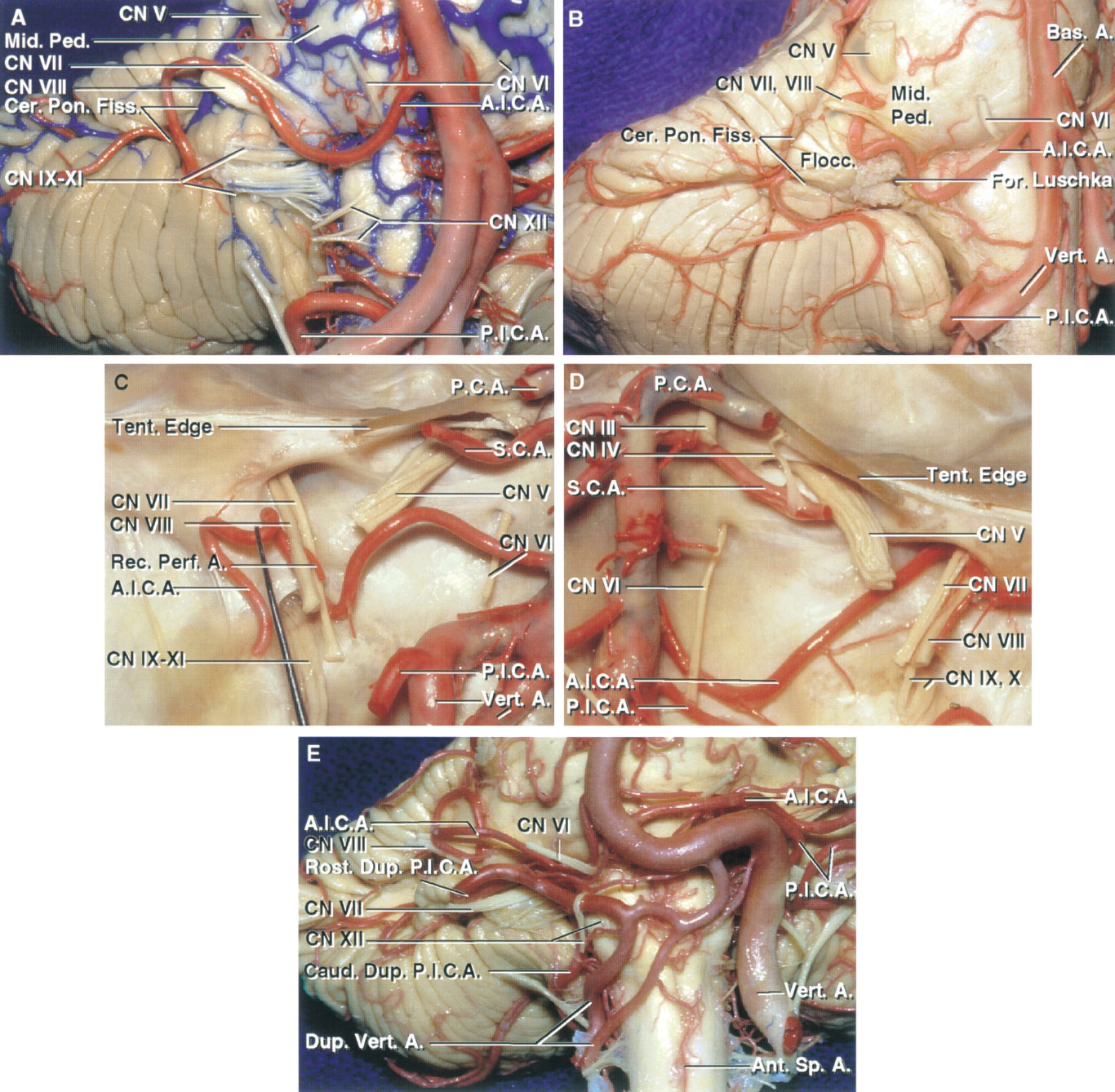 FIGURE 2.11. AICA relationships. A, anterolateral view of the brainstem and right petrosal cerebellar surface. The right AICA passes below the abducens and between the facial and vestibulocochlear nerves before reaching the cerebellopontine fissure and petrosal cerebellar surface. B, the right AICA arises just above the vertebrobasilar junction and passes below the pontomedullary junction before turning upward to reach the surface of the middle cerebellar peduncle. It passes above the floccular and along the cerebellopontine fissure to reach the petrosal surface. C and D, the cerebellum and brainstem have been removed to show the relationship of the AICAs to the cranial nerves and internal acoustic meatus. C, the left AICA passes above the abducens nerve and below the facial and vestibulocochlear nerves, where it gives rise to a recurrent perforating branch to the brainstem. The SCA passes above the posterior trigeminal root. D, the right AICA loops into the porus of the meatus and between the facial and vestibulocochlear nerves. E, another brainstem and cerebellum. The right vertebral artery is a duplicate artery and gives rise to duplicate PICAs. The AICAs arise from the lower part of the basilar artery. The left AICA is larger than the right. The rostral duplicate PICA loops upward into the cerebellopontine angle. The left vertebral artery loops upward into the left cerebellopontine angle. A., artery; A.I.C.A., anteroinferior cerebellar artery; Ant., anterior; Bas., basilar; Caud., caudal; Cer. Pon., cerebellopontine; CN, cranial nerve; Dup., duplicate; Fiss., fissure; Flocc., flocculus; For., foramen; Mid., middle; P.C.A., posterior cerebral artery; Ped., peduncle; Perf., perforating; P.I.C.A., posteroinferior cerebellar artery; Pon., pontine; Rec., recurrent; Rost., rostral; S.C.A., superior cerebellar artery; Sp., spinal; Tent., tentorial; Vert., vertebral.