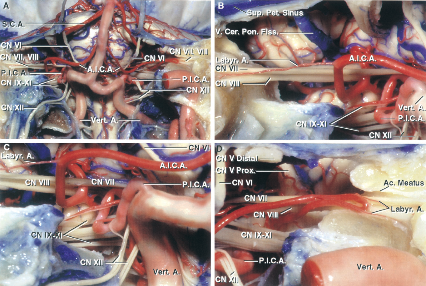 FIGURE 2.12. AICA relationships. A, anterior view. The clivus and adjacent part of the occipital and temporal bones have been removed to expose the front of brainstem, vertebral and basilar arteries, facial and vestibulocochlear nerves in the right internal acoustic meatus, and the hypoglossal nerve in the right hypoglossal canal. The left AICA loops into the porus of the meatus. B, enlarged view of the right cerebellopontine angle. The AICA passes between the facial and vestibulocochlear nerves. The hypoglossal nerves are stretched around the posterior surface of the vertebral artery. The vertebral artery kinks upward into the cerebellopontine angle where the PICA arises in close relationship to the root exit zone of the facial nerve, a common finding in hemifacial spasm. A labyrinthine artery arises from the AICA. C, another enlarged view of the right cerebellopontine angle. The labyrinthine artery passes laterally with the facial nerve. The PICA loops upward and contacts the lower margin of the facial nerve. The vein of the cerebellopontine fissure ascends to empty into the superior petrosal sinus. D, the left AICA passes below the abducens, facial, and vestibulocochlear nerves and loops into the porus where it gives off two labyrinthine branches. Some of the hypoglossal rootlets are stretched over the PICA. The posterior trigeminal nerve was divided behind Meckel's cave. The proximal stump arises from the midpons and the distal portion enters Meckel's cave. A., artery; Ac., acoustic; A.I.C.A., anteroinferior cerebellar artery; Cer. Pon., cerebellopontine; CN, cranial nerve; Fiss., fissure; Labyr., labyrinthine; Pet., petrosal; P.I.C.A., posteroinferior cerebellar artery; Prox., proximal; S.C.A., superior cerebellar artery; Sup., superior; V., vein; Vert., vertebral.