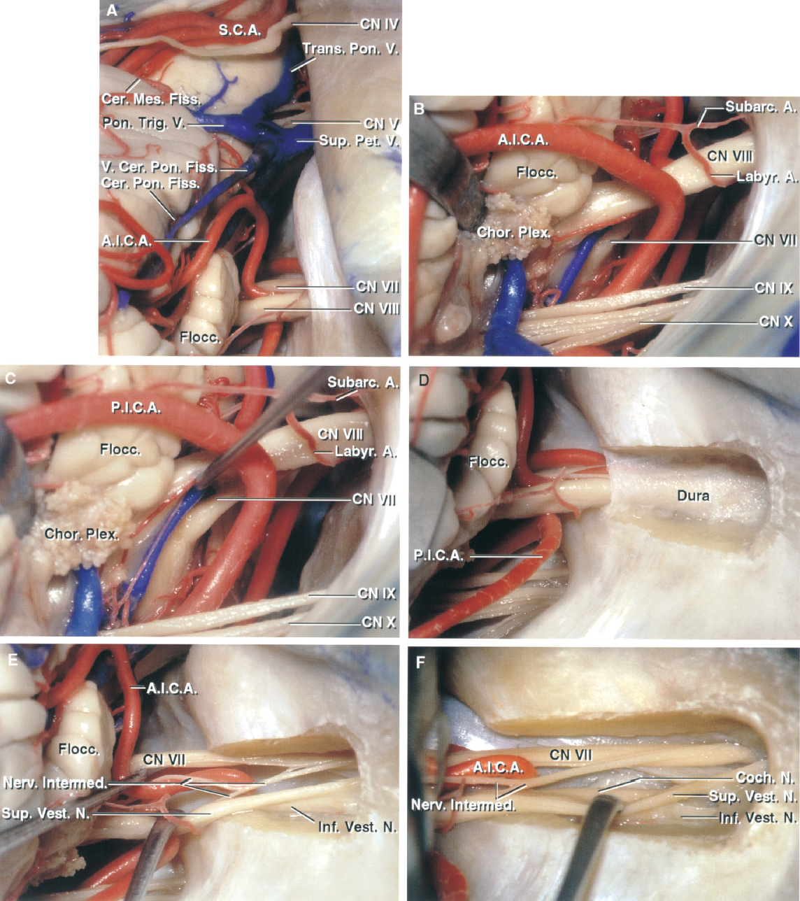 FIGURE 2.13. A, AICA relationships in the right CPA by retrosigmoid approach. The AICA passes laterally between the facial and vestibulocochlear nerves and turns medially to course along the middle cerebellar peduncle and cerebellopontine fissure. A large superior petrosal vein with multiple tributaries, including the pontotrigeminal and transverse pontine veins and the vein of the cerebellopontine fissure, passes behind the trigeminal nerve. The flocculus hides the junction of the facial and vestibulocochlear nerves with the brainstem. B, the flocculus and choroid plexus, which protrudes from the foramen of Luschka, have been elevated to expose the junction of the facial and vestibulocochlear nerves with the brainstem, where the facial nerve is seen below the vestibulocochlear nerve. An AICA branch gives rise to both the subarcuate and labyrinthine arteries. C, a dissector elevates the vestibulocochlear nerve to more clearly define the junction of the facial nerve with the brainstem. The junction of the facial nerve with the brainstem is easier to expose below rather than above the vestibulocochlear nerve. D, the posterior meatal wall has been removed to expose the dura lining the meatus. E, the meatal dura has been opened and the vestibulocochlear nerve displaced downward to expose the facial nerve coursing anterior and superior within the meatus. The nervus intermedius, which arises on the anterior surface of the vestibulocochlear nerve and passes laterally to join the facial nerve, is composed of several rootlets, as is common. F, the cleavage plane between the superior and inferior vestibular nerves has been developed. The cochlear nerve is located anterior to the inferior vestibular nerve. A., artery; A.I.C.A., antero- inferior cerebellar artery; Cer. Mes., cerebellomesencephalic; Cer. Pon., cerebellopontine; Chor., choroid; CN, cranial nerve; Coch., cochlear; Fiss., fissure; Flocc., flocculus; Inf., inferior; Intermed., intermedius; Labyr., labyrinthine; N., 