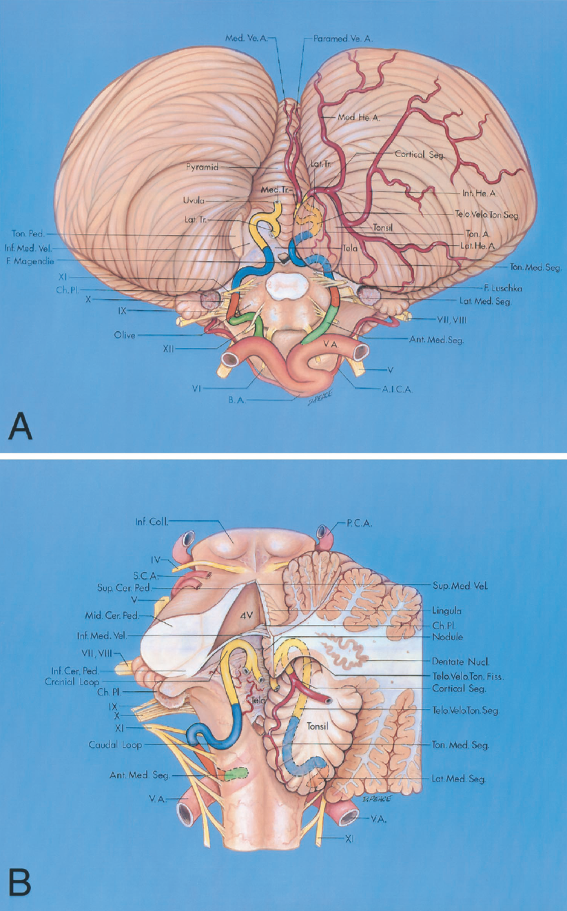FIGURE 2.15. A and B. Segments of the PICA. A, inferior view. The left tonsil has been removed at the level of the tonsillar peduncle, its site of attachment to the remainder of the hemisphere. The anterior medullary segment (green) extends from the origin at the vertebral artery to the level of the inferior olive. This segment courses rostral or caudal to or between the rootlets of the hypoglossal nerve. The lateral medullary segment (orange) extends from the level of the most prominent part of the olive to the level of the rootlets of the glossopharyngeal, vagus, and accessory nerves. The tonsillomedullary segment (blue) extends from the level of the latter nerves around the caudal half of the tonsil and often forms a caudally convex loop. The telovelotonsillar segment (yellow) extends from the midlevel of the tonsil to the exit from the cleft located between the tela choroidea and the inferior medullary velum superiorly and the superior pole of the tonsil inferiorly. The cortical segment (red) extends from where the artery and its branches exit the fissures between the tonsil, vermis, and hemisphere to reach the cortical surface. The bifurcation of the main trunk into medial and lateral trunks is often located at the level of the tonsillomedullary or the telovelotonsillar segments. The medial trunk gives rise to median and paramedian vermian arteries. The lateral trunk gives rise to lateral, intermediate, and medial hemispheric and tonsillar arteries. B, enlarged posterior view. The left and part of the right halves of the cerebellum was removed to show the relationship of the PICA to the roof of the fourth ventricle. The dentate nucleus wraps around the superior pole of the tonsil. The telovelotonsillar fissure is below the inferior half of the roof of the fourth ventricle between the tonsil, tela choroidea, and inferior medullary velum. The caudal loop of the PICA is near the caudal pole of the tonsil, and the cranial loop is above the rostral pole of the tonsi
