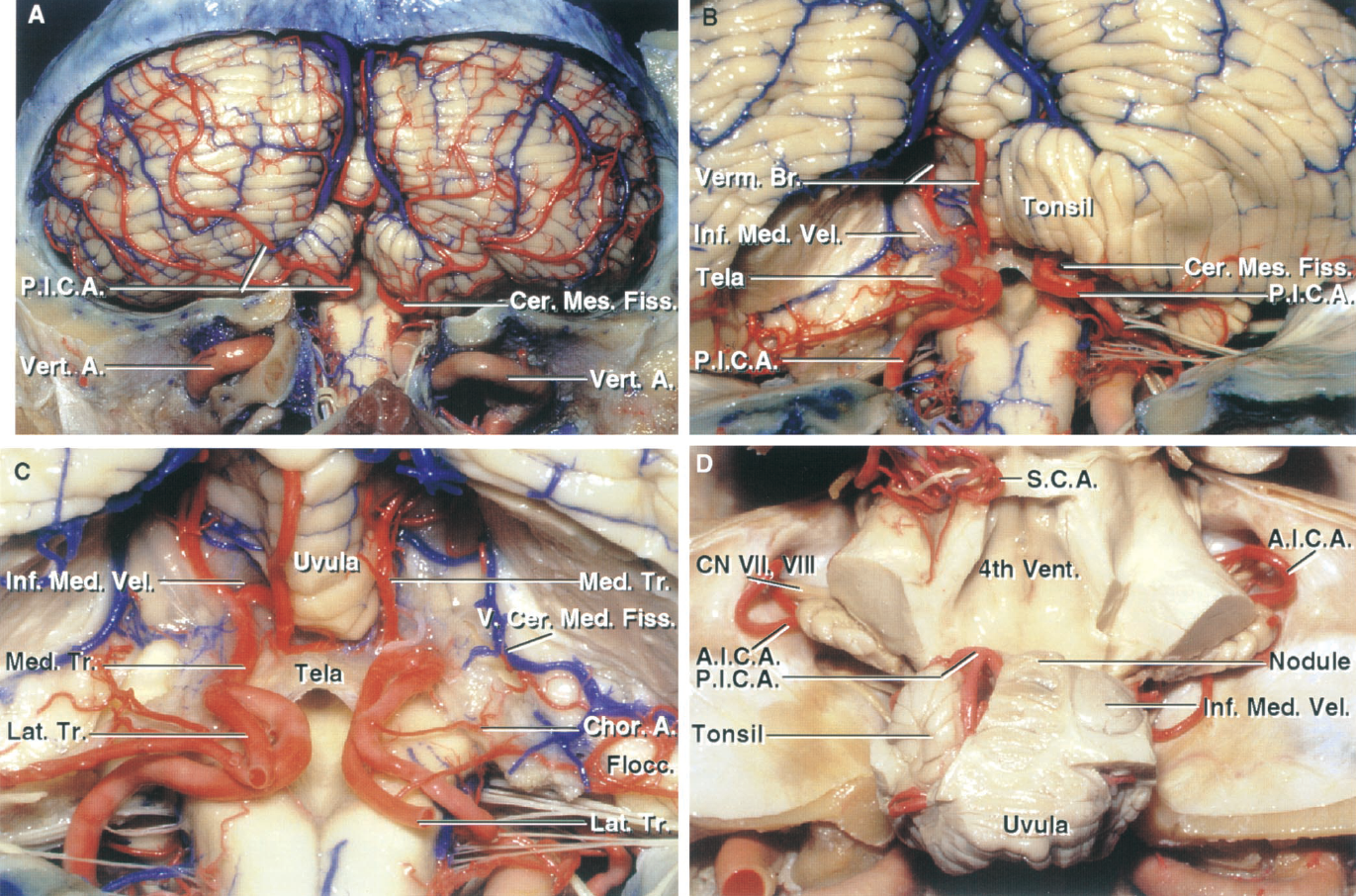 FIGURE 2.16. PICA relationships. A, the PICA courses around the medulla, enters the cerebellomedullary fissure, and exits the fissure to supply the suboccipital surface. The fissure extends upward between the cerebellar tonsils on one side and the medulla and inferior half of the ventricle roof on the other side. The PICAs frequently form a caudal loop at the lower pole of the cerebellar tonsils. B, enlarged view. The left tonsil has been removed to expose the course of the PICA within the cerebellomedullary fissure. The PICAs often loop upward around the rostral pole of the tonsil, where they course between the rostral pole of the tonsil on the lower side and the tela choroidea and inferior medullary velum on the upper side. C, both tonsils and the adjacent part of the biventral lobule have been removed to expose the PICA trunks. The PICAs divide into a medial trunk, which supplies the vermis and adjacent part of the hemisphere, and a caudal trunk, which loops around the tonsil to supply the largest part of the hemispheric surface. Choroidal branches pass to the tela choroidea and choroid plexus in the roof. The vein of the cerebellomedullary fissure crosses the tela and velum and passes above the flocculus to join the veins in the cerebellopontine angle that empty into the superior petrosal sinus. D, another dissection showing the relationship of the cranial loop of the PICA to the tonsils and inferior medullary velum. Both tonsils and the nodule and uvula have been preserved. The inferior medullary velum has been preserved on the right side. The left half of the inferior medullary velum has been removed to expose the supratonsillar loop of the PICA, which courses between the velum and the tonsil. The velum stretches laterally from the nodule across the rostral pole of the tonsil to blend into the flocculus. A., artery; A.I.C.A., antero- inferior cerebellar artery; Br., branch; Cer. Med., cerebellomedullary; Cer. Mes., cerebellomesencephalic; Chor., choroidal; CN,