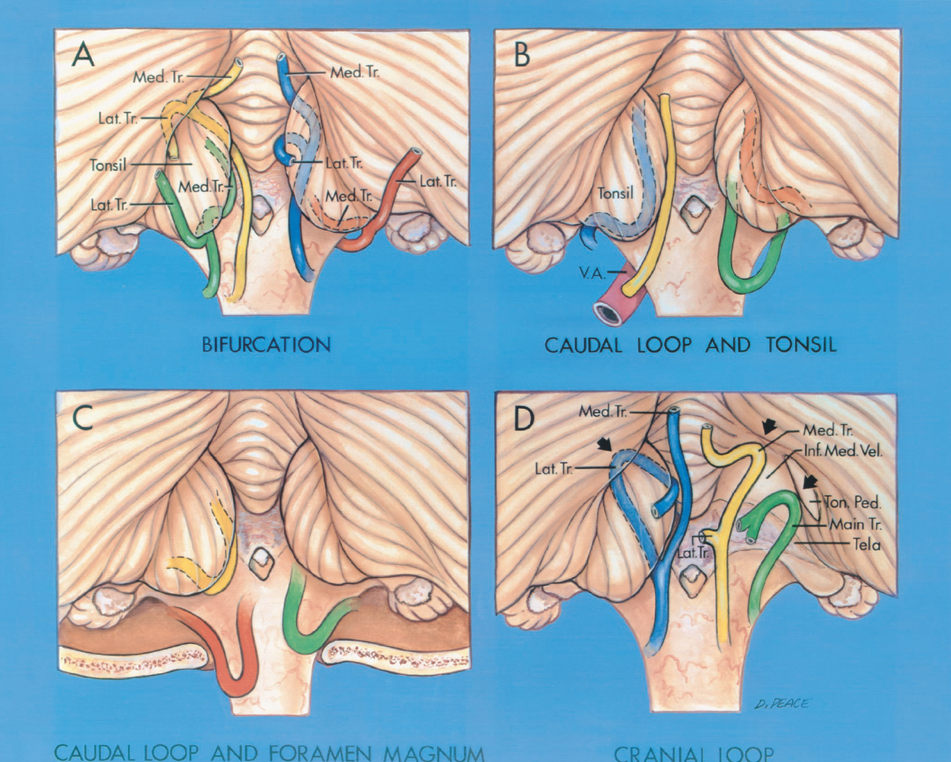 FIGURE 2.17. Locations of the PICA bifurcation, the caudal loops in relation to the tonsil and the foramen magnum, and the cranial loops. A, site of the bifurcation in relation to the tonsil. The main trunk of the PICA may bifurcate at any site along the margin of the tonsil. Inferolateral bifurcation (red): the lateral trunk passes upward lateral to the tonsil to reach the hemisphere, and the medial trunk passes along the anteromedial margin of the tonsil. Inferomedial bifurcation (green): the lateral trunk passes superolateral over the posterior margin of the tonsil to reach the hemispheric surface, and the medial trunk passes upward along the anteromedial margin of the tonsil. Superomedial bifurcation (blue): the lateral trunk passes posteriorly over the medial surface of the tonsil, and the medial trunk ascends to supply the vermis. Superolateral bifurcation (yellow): the lateral trunk passes out of the fissure between the tonsil and the hemisphere and proceeds to the hemispheric surface, and the medial trunk ascends to supply the vermis. B, location of the caudal loop in relation to the tonsil. The tonsillomedullary segment often formed a caudally convex loop (blue, orange, green) as it passed medially across the posterior surface of the medulla. This caudal part of the tonsillomedullary segment was located between 10.0 mm inferior and 13.0 mm superior (average, 1.6 mm superior) to the caudal tip of the tonsil. This loop could be found superior to (orange), inferior to (green), or at the level of (blue) the caudal tip of the tonsil. In some cases (yellow), the PICA ascended from the vertebral artery (V.A.) or took another course to reach the medial surface of the tonsil without forming a caudal loop. C, relation of the caudal loop to the foramen magnum. Most caudal loops were superior to the foramen magnum (yellow), but they could be inferior to (red) or at the level of (green) the foramen magnum. The caudal loop was located between 7.0 mm inferior and 18.0 mm 