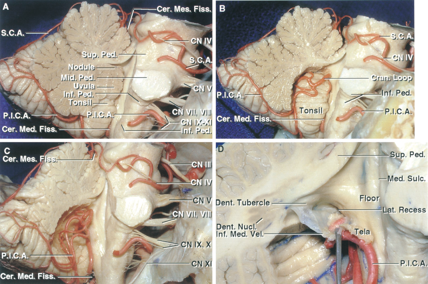 FIGURE 2.18. PICA relationships. A, the right half of the cerebellum has been removed. The right PICA passes between the rootlets of the vagus and accessory nerves to reach the surface of the inferior cerebellar peduncle. The left PICA, as it courses around the rostral pole of the tonsil, is hidden by the remaining left half of the uvula. The SCA passes around the brainstem below the oculomotor nerve and above the trigeminal nerve. B, the part of the uvula and nodule medial to the tonsil has been removed to expose the PICAs passage through the cerebellomedullary fissure and around the tonsil. The artery frequently forms a caudal loop at the lower margin of the tonsil and a cranial or supratonsillar loop that wraps around the rostral pole of the tonsil. C, the tonsil has been removed to expose the PICA's looping course through the cerebellomedullary fissure. D, the inferior medullary velum, which stretches across the rostral pole of the tonsil, has been folded downward to expose the dentate tubercle, a prominence near the fastigium that underlies the dentate nucleus. The lateral recess is also exposed. The telovelotonsillar segment of the PICA courses in the cerebellomedullary fissure between the tela and velum on one side and the tonsil on the other side. Cer. Med., cerebellomedullary; Cer. Mes., cerebellomesencephalic; CN, cranial nerve; Cran., cranial; Dent., dentate; Fiss., fissure; Inf., inferior; Lat., lateral; Med., median, medullary; Mid., middle; Nucl., nucleus; Ped., peduncle; P.I.C.A., posteroinferior cerebellar artery; S.C.A., superior cerebellar artery; Sulc., sulcus; Sup., superior; Vel., velum.