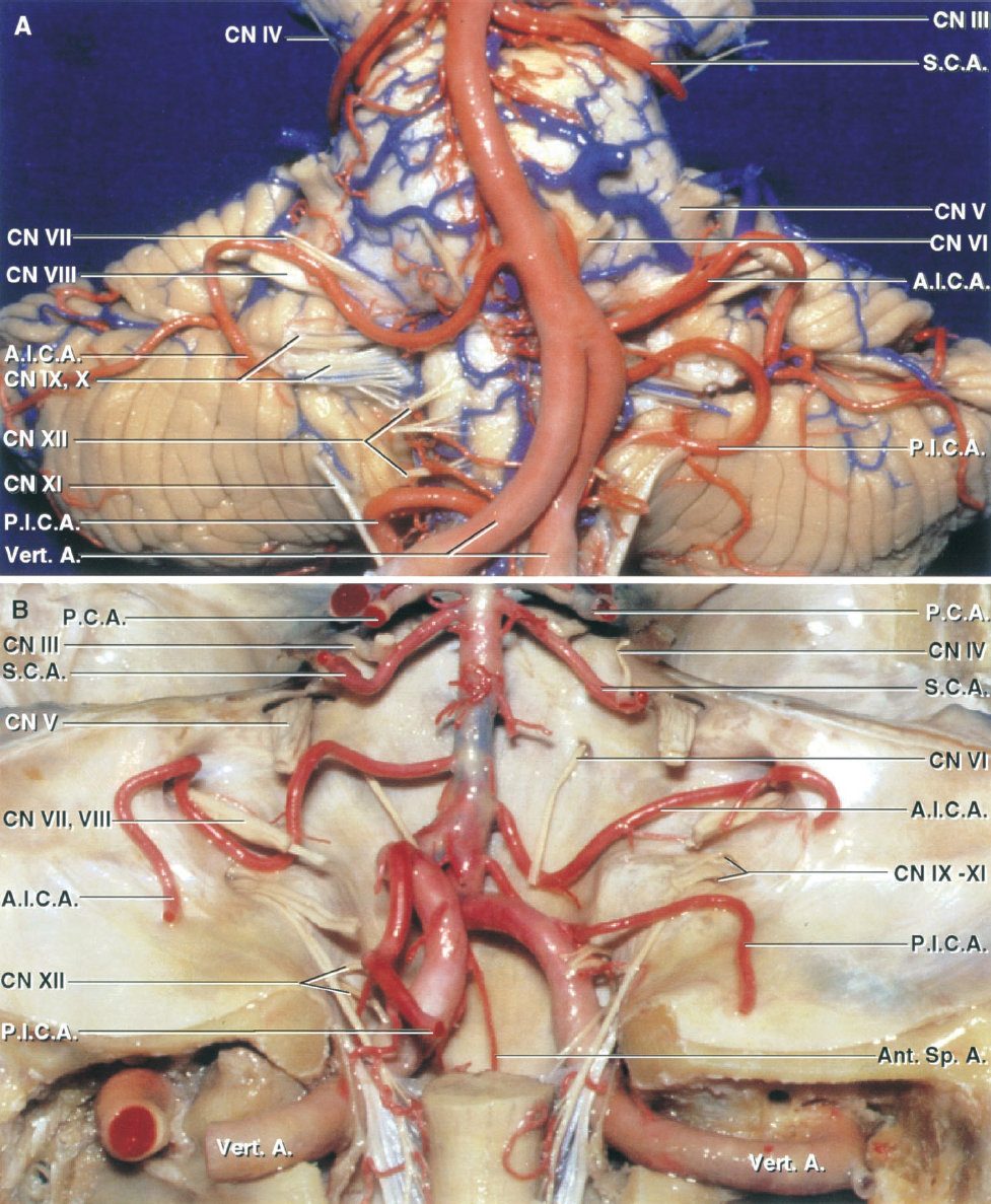 FIGURE 2.2. A, anterior view of the brainstem and cerebellar arteries. B, posterior view of the cranial base with the cranial nerves and arteries preserved. A and B, the SCA arises at the midbrain level and encirclesthe brainstem near the pontomesencephalic junction. The SCA courses below the oculomotor and trochlear nerves and above the trigeminal nerve. The SCA loops down closer to the trigeminal nerve in B than in A. The AICA arises at the pontine level and courses by the abducens, facial, and vestibulocochlear nerves. In A, both AICAs pass below the abducens nerves. In B, the left abducens nerve passes in front of the AICA and the right abducens nerve passes behind the AICA. The PICAs arise from the vertebral artery at the medullary level and course in relation to the glossopharyngeal, vagus, accessory, and hypoglossal nerves. The origin of the SCAs are quite symmetrical from side to side. There is slight asymmetry in the level of origin of the AICAs and marked asymmetry in the level of the origin of the PICAs, especially in A. A., artery; A.I.C.A., anteroinferior cerebellar artery; Ant., anterior; CN, cranial nerve; P.C.A., posterior cerebral artery; P.I.C.A., posteroinferior cerebellar artery; S.C.A., superior cerebellar artery; Sp., spinal; Vert., vertebral.